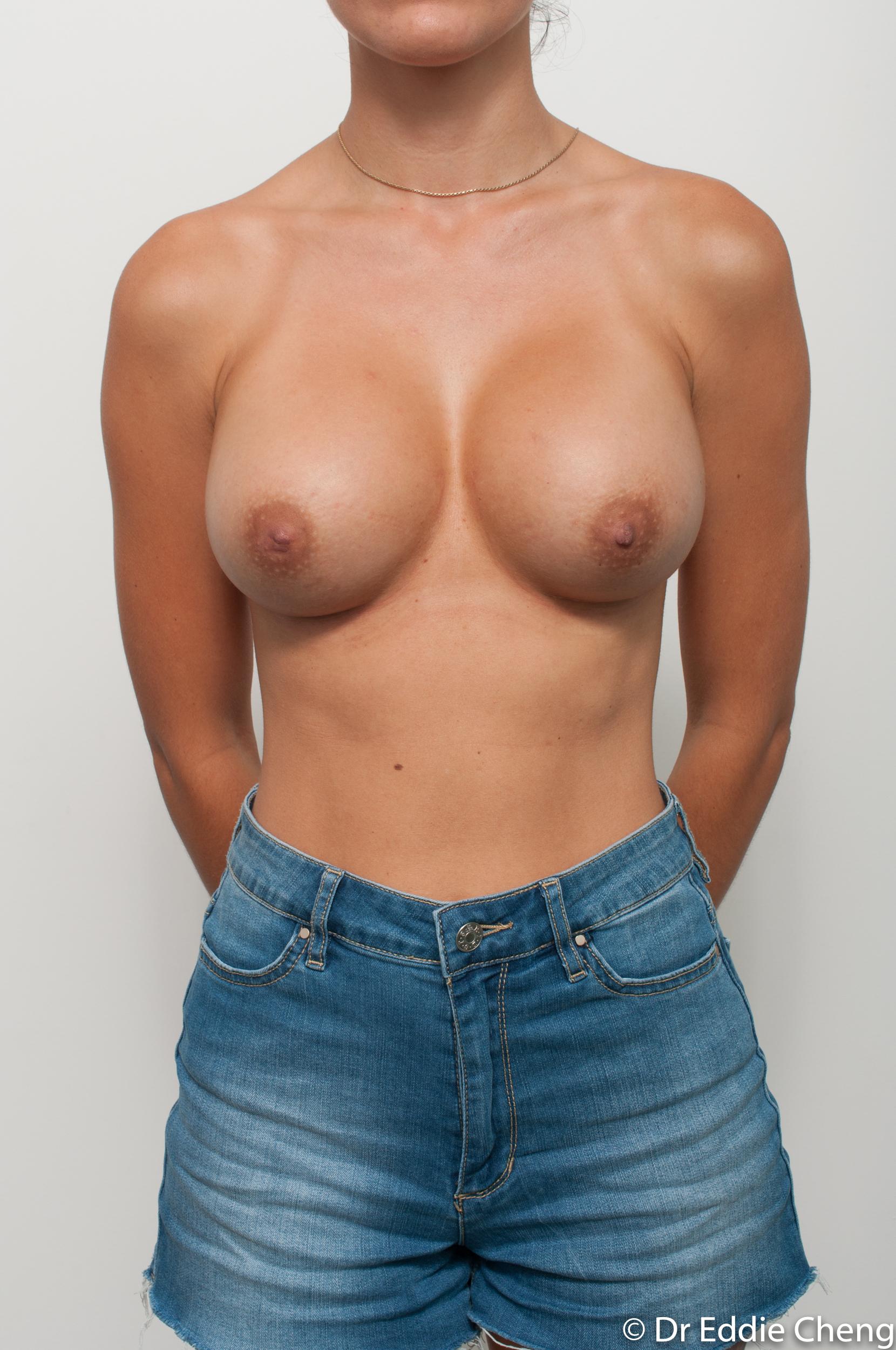 breast implant revision dr eddie cheng brisbane-8