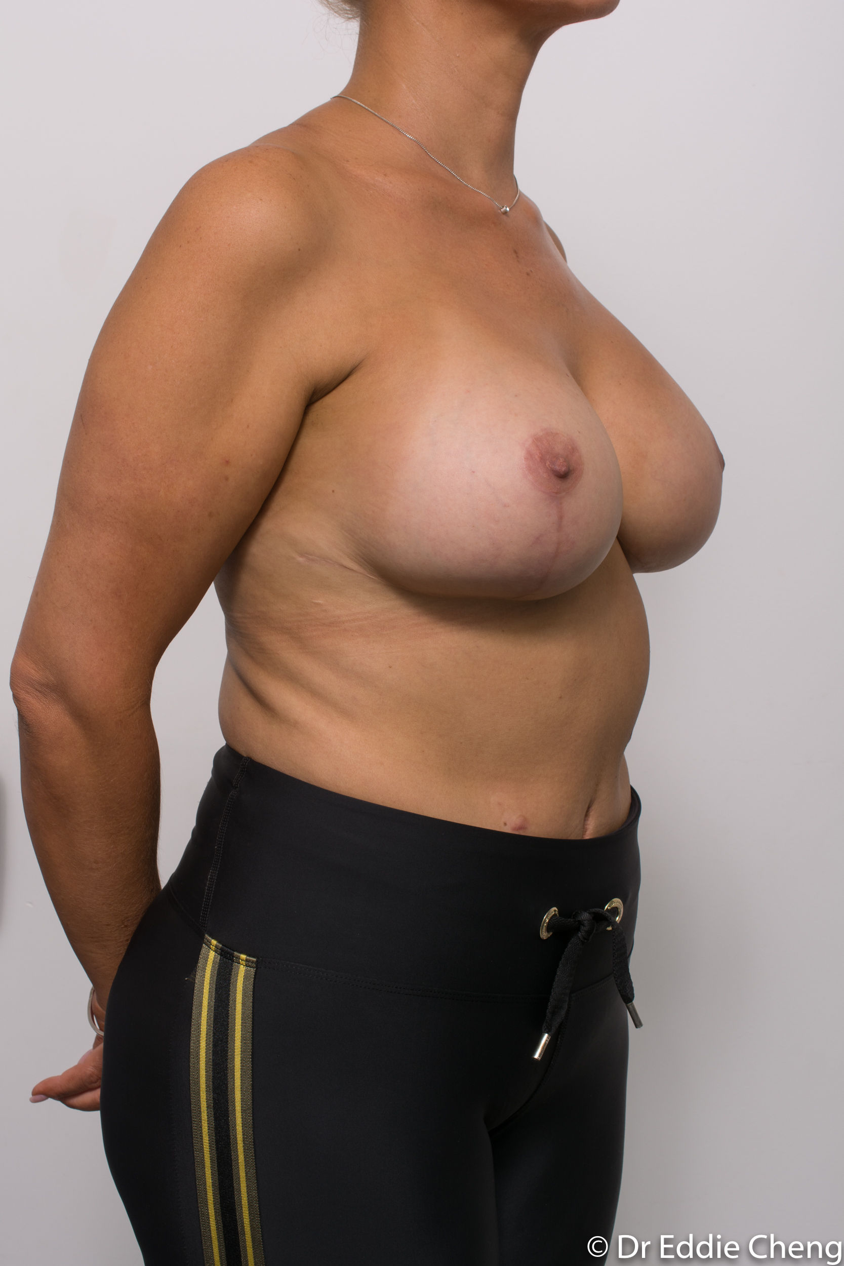 breast reduction brisbane by Dr Eddie cheng-1-3