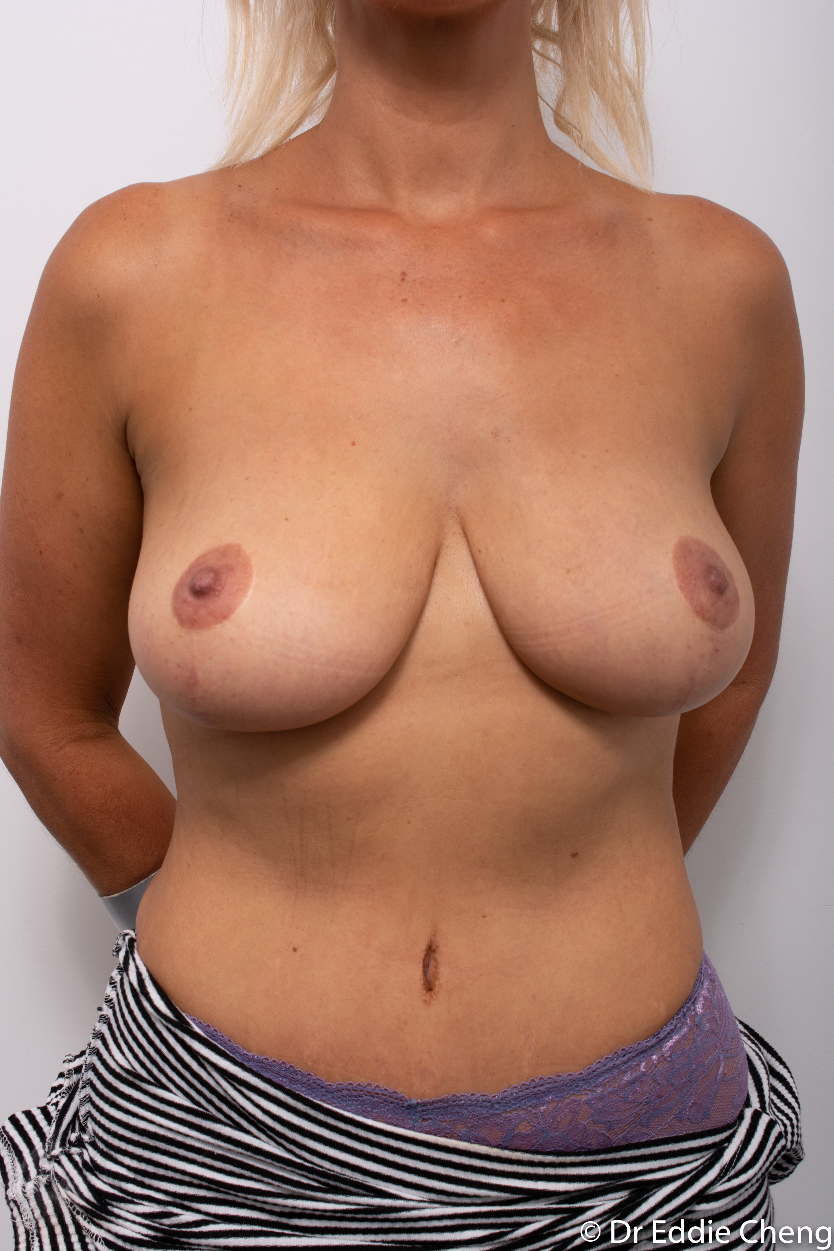 breast reduction augmentation brisbane by Dr Eddie cheng-1-4