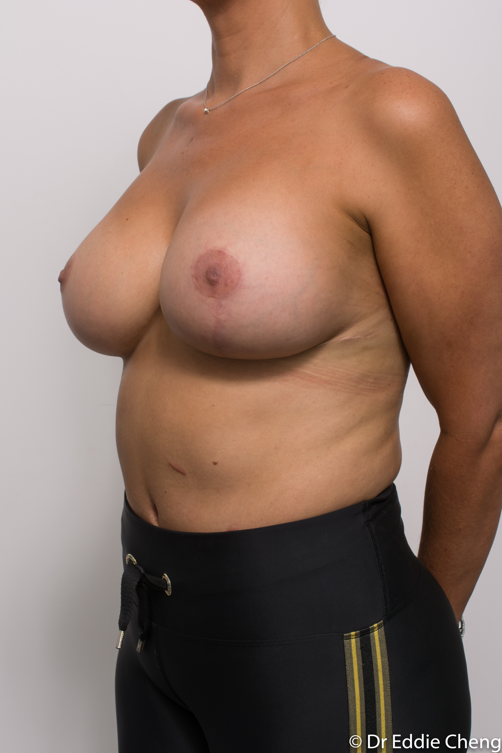 breast reduction brisbane by Dr Eddie cheng-1-6