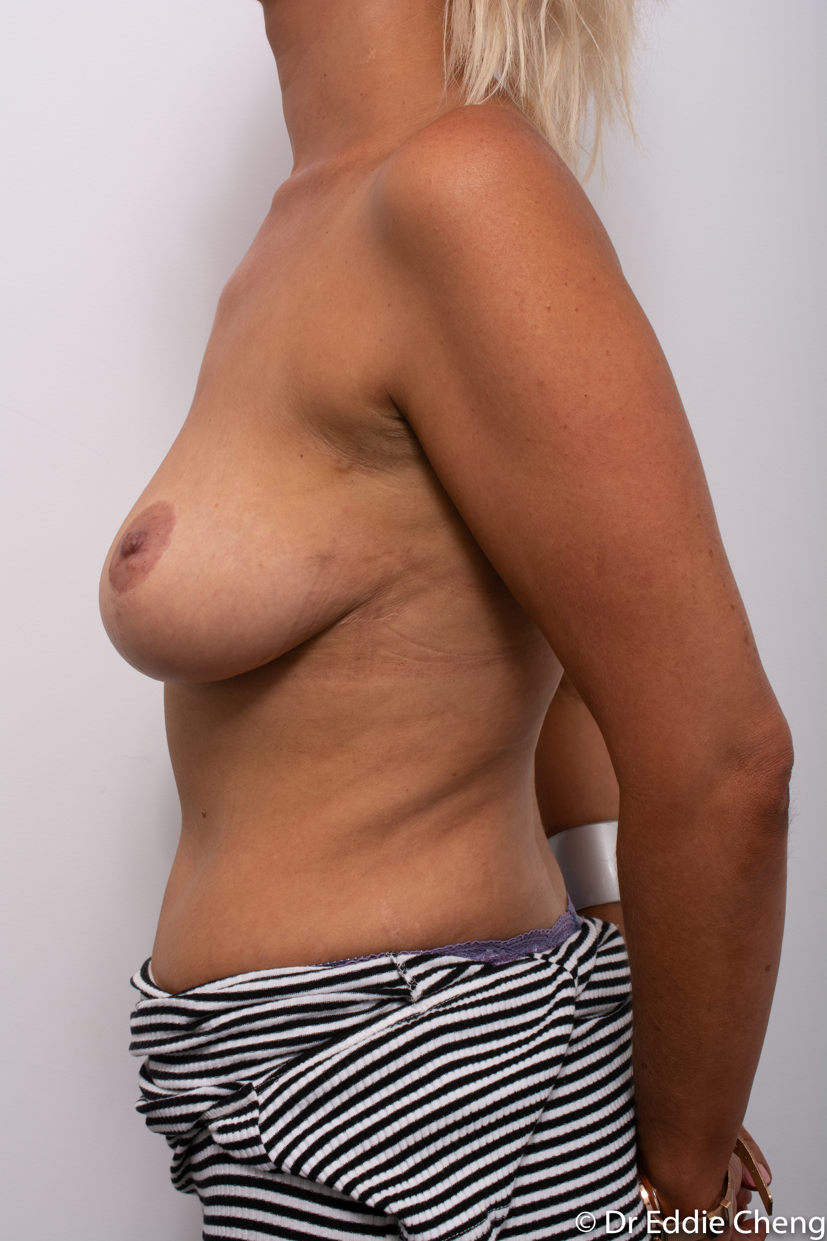 breast reduction augmentation brisbane by Dr Eddie cheng-1-7