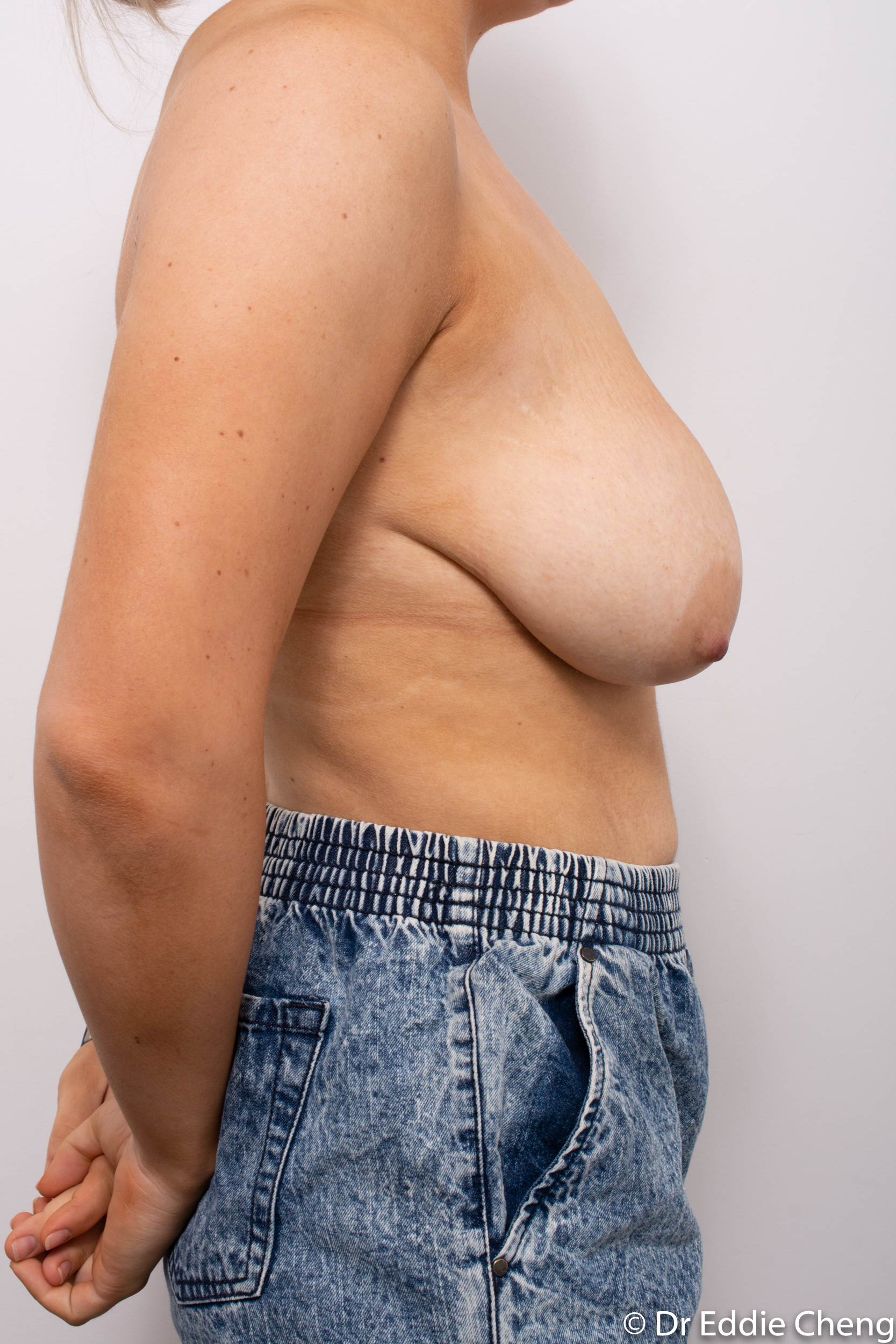 breast reduction brisbane by Dr Eddie cheng-1-8