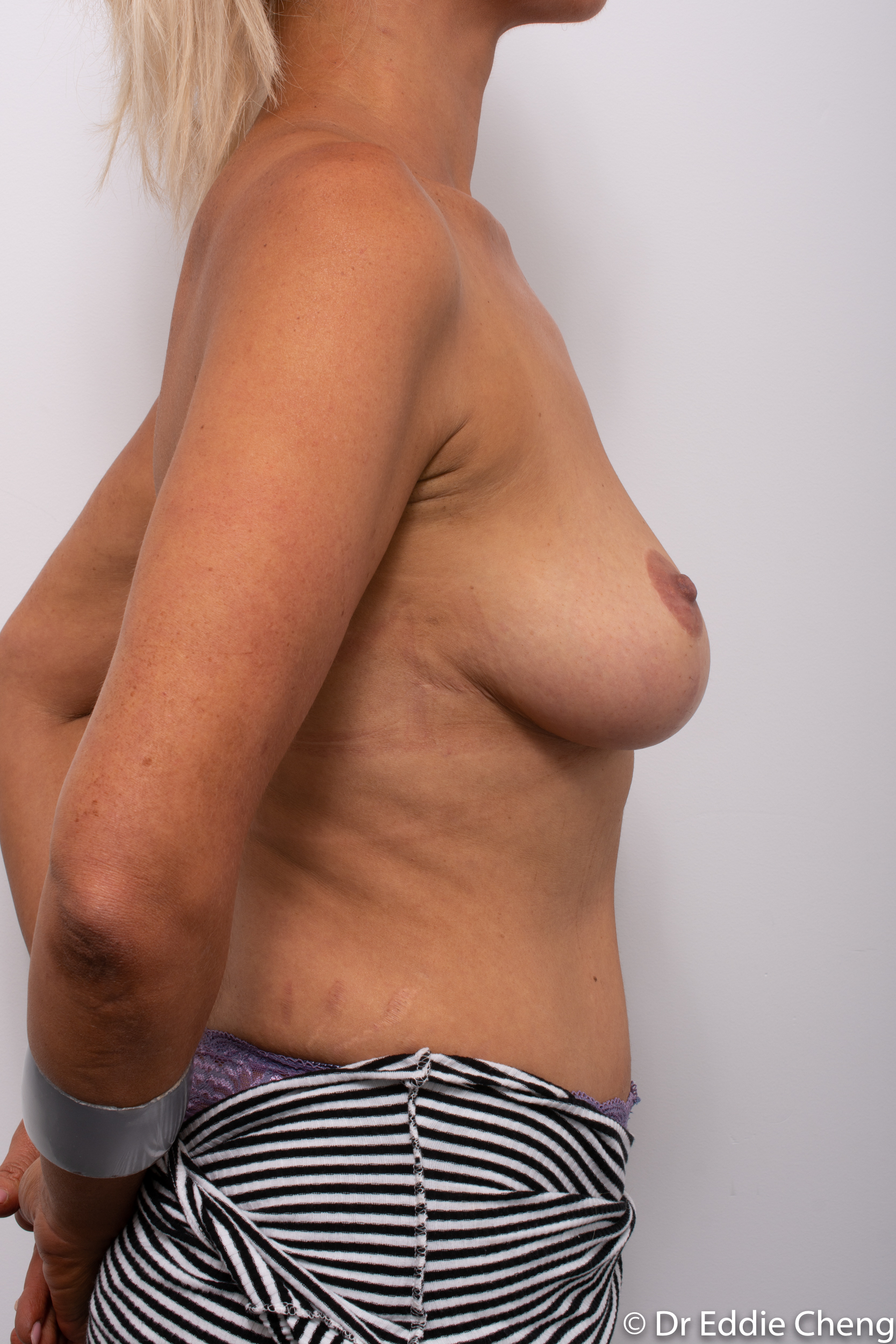 breast reduction augmentation brisbane by Dr Eddie cheng-1