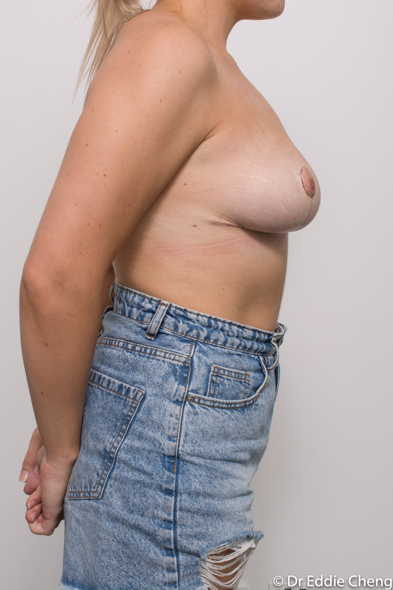 breast reduction brisbane by Dr Eddie cheng-10