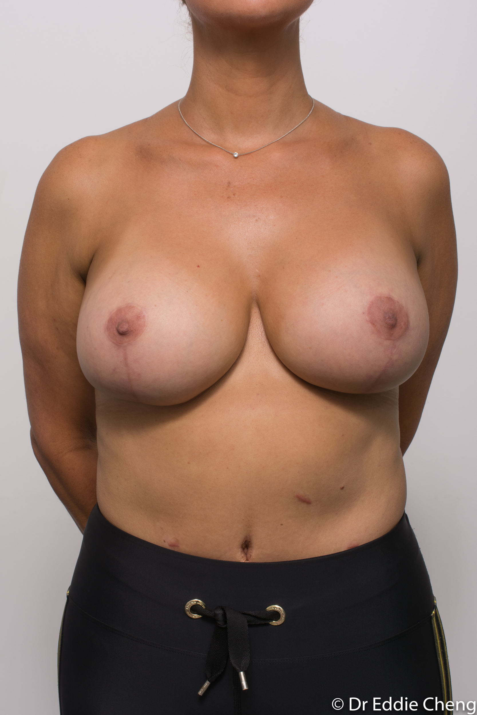 breast reduction brisbane by Dr Eddie cheng-2-3
