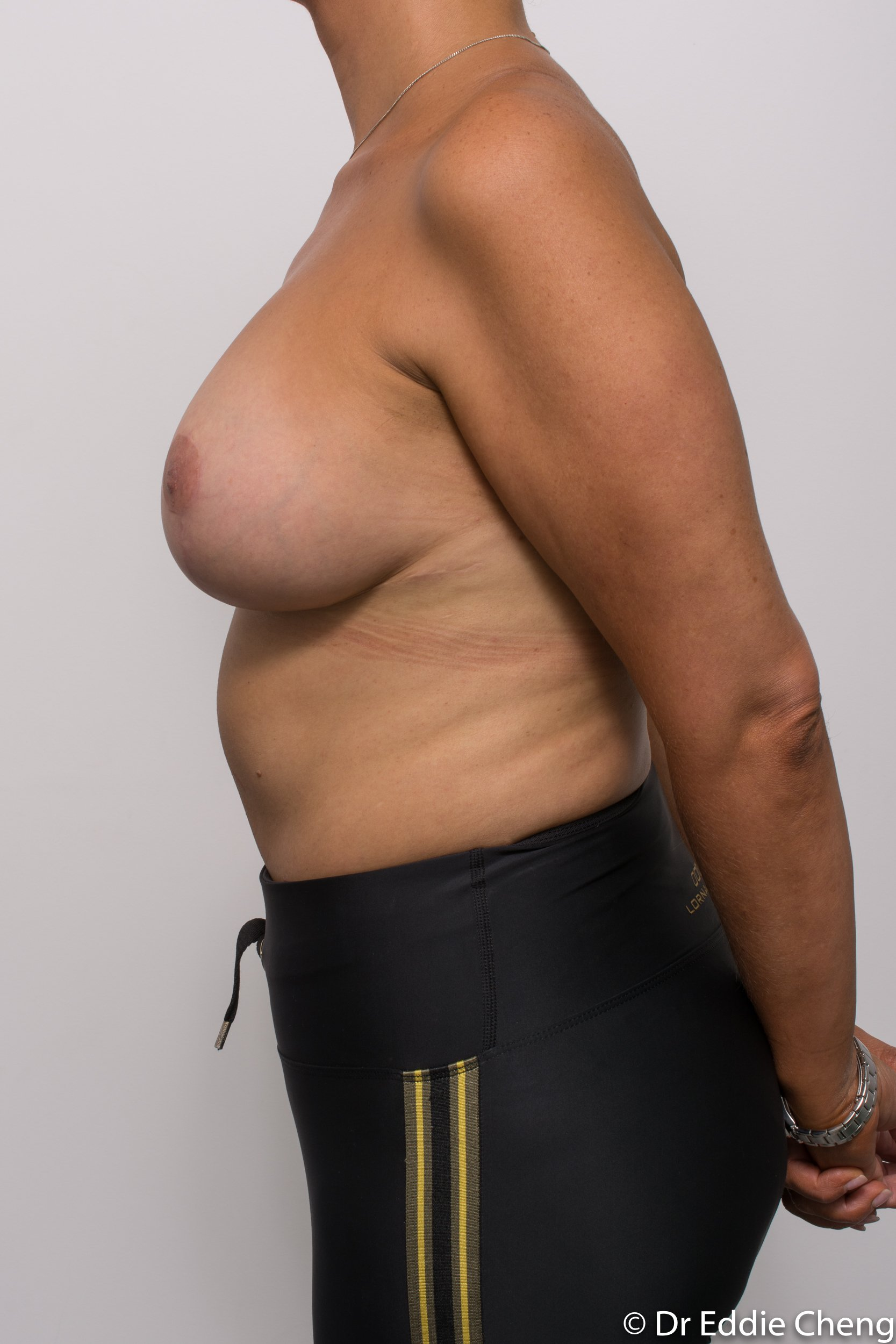breast reduction brisbane by Dr Eddie cheng-2-5