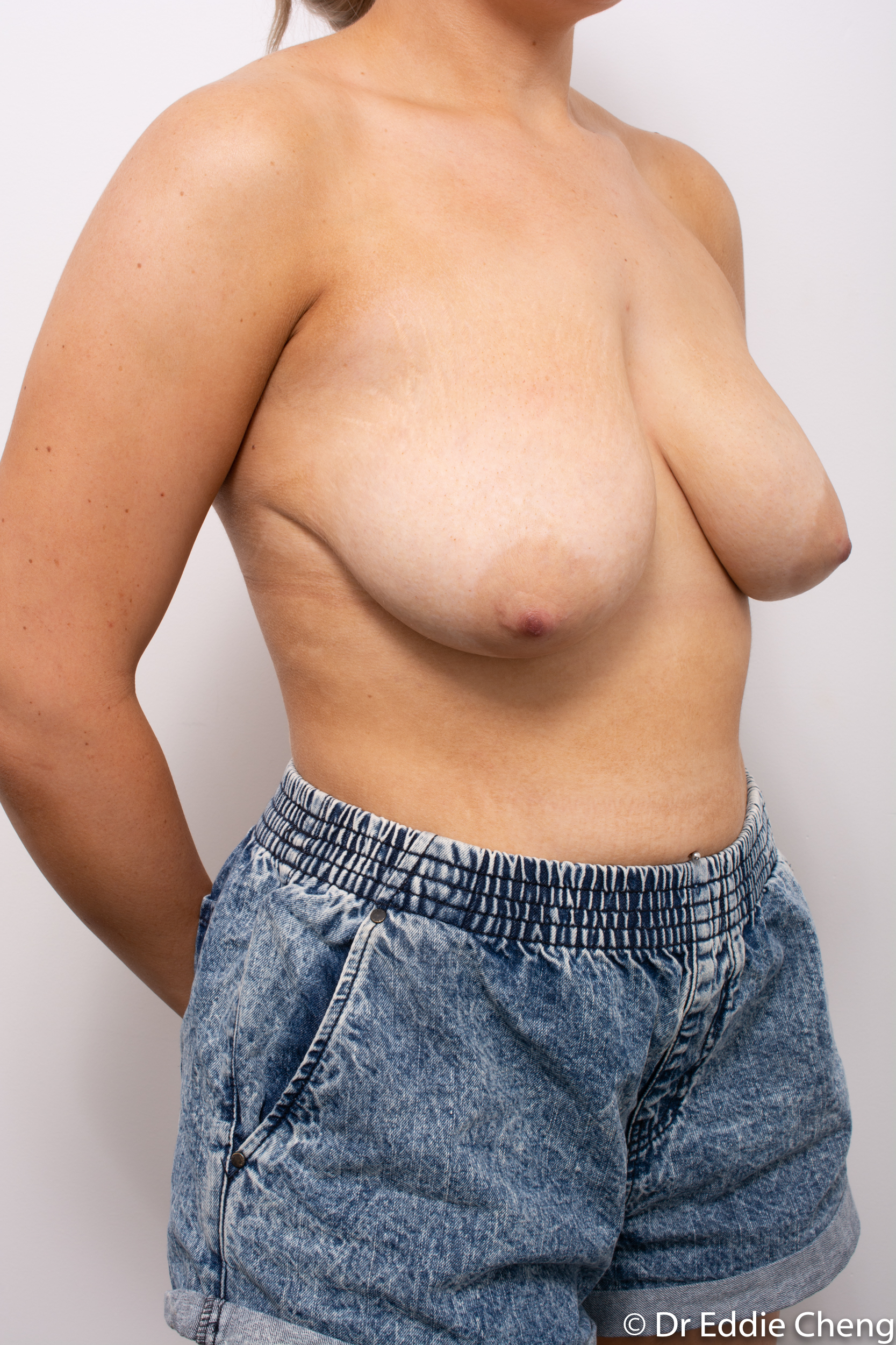 breast reduction brisbane by Dr Eddie cheng-2-6