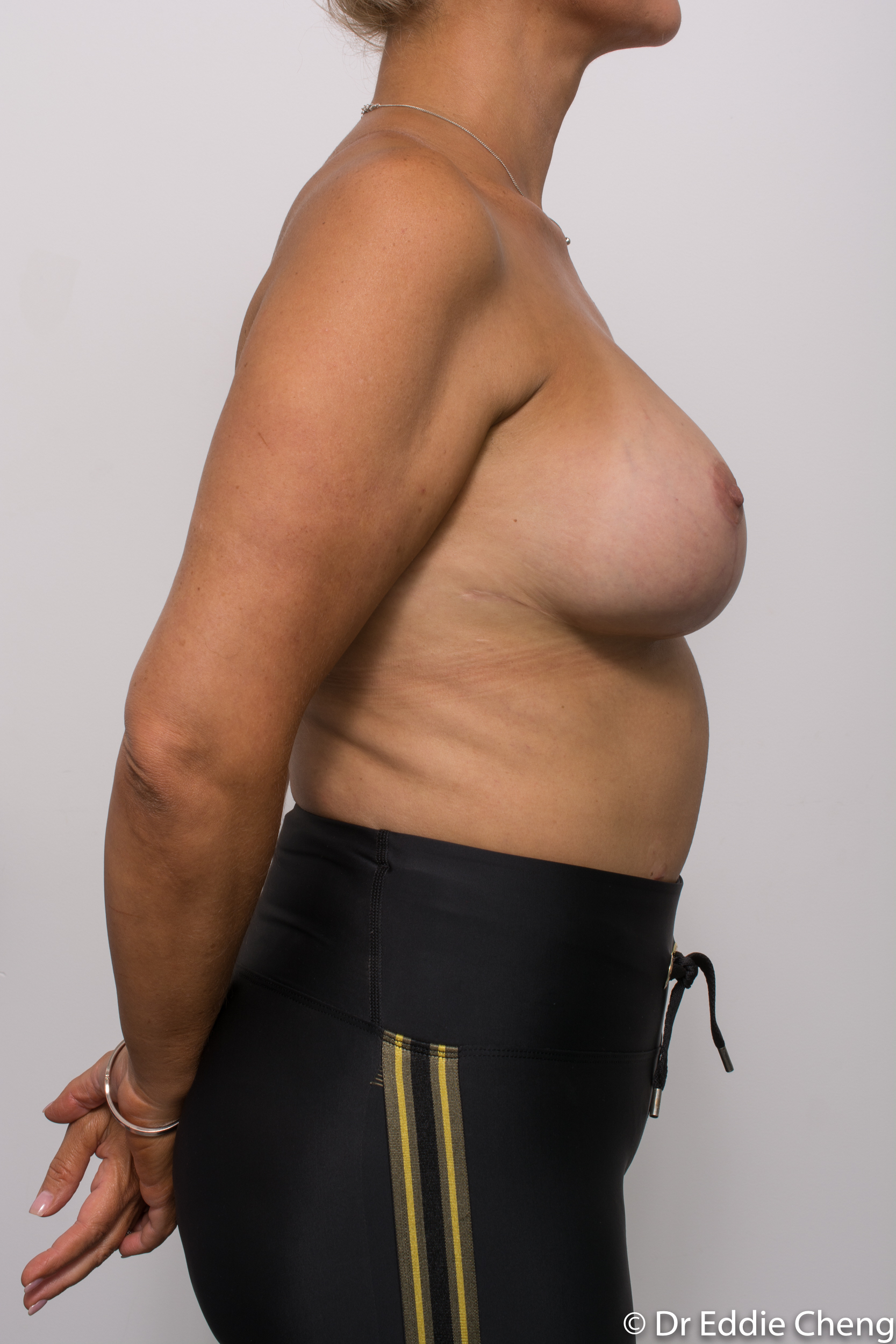 breast reduction brisbane by Dr Eddie cheng-2