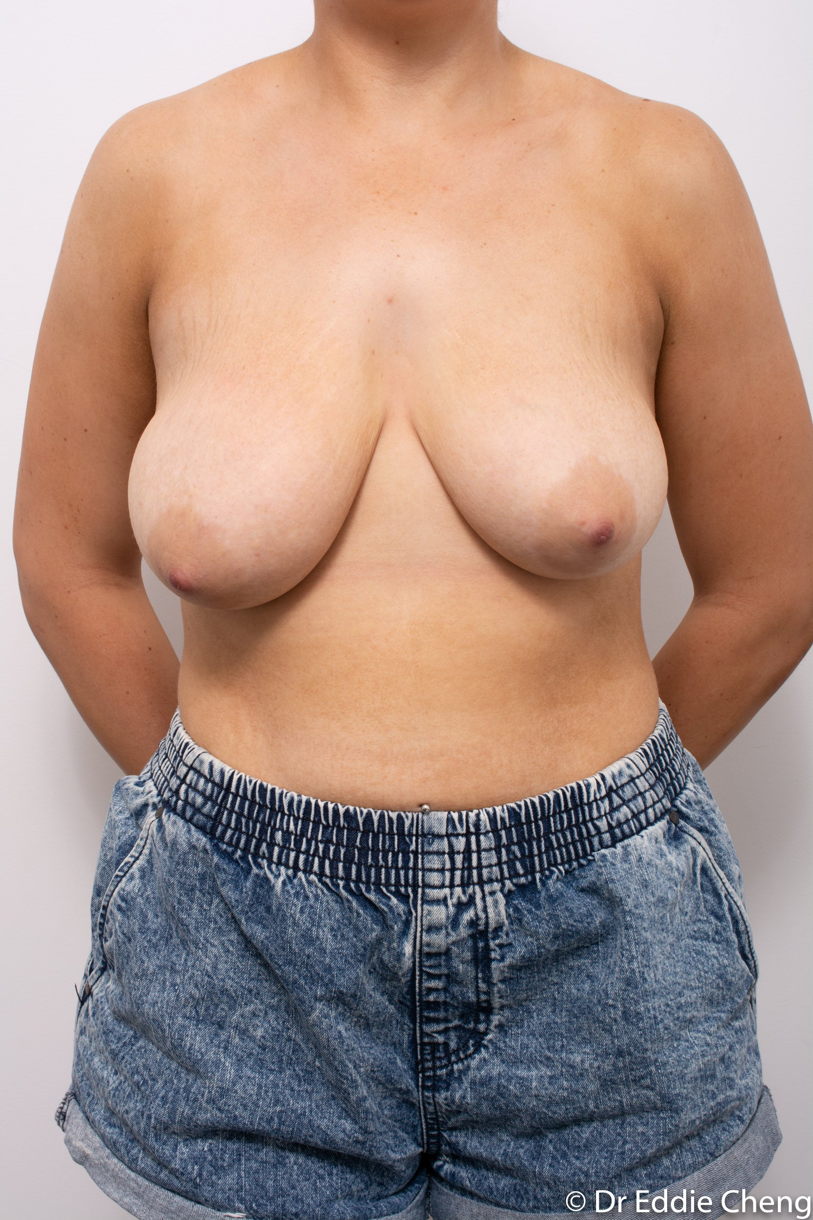 breast reduction brisbane by Dr Eddie cheng-3