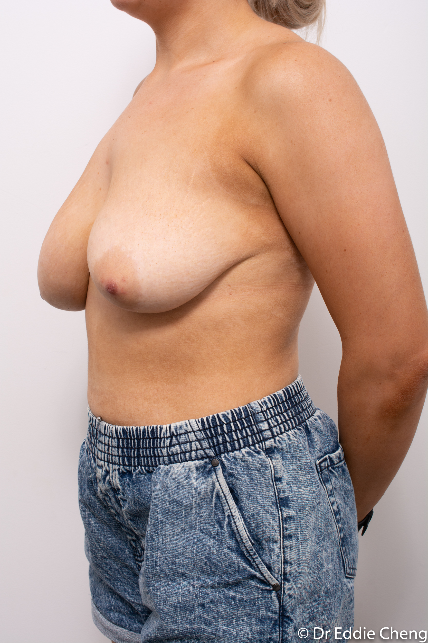 breast reduction brisbane by Dr Eddie cheng-4