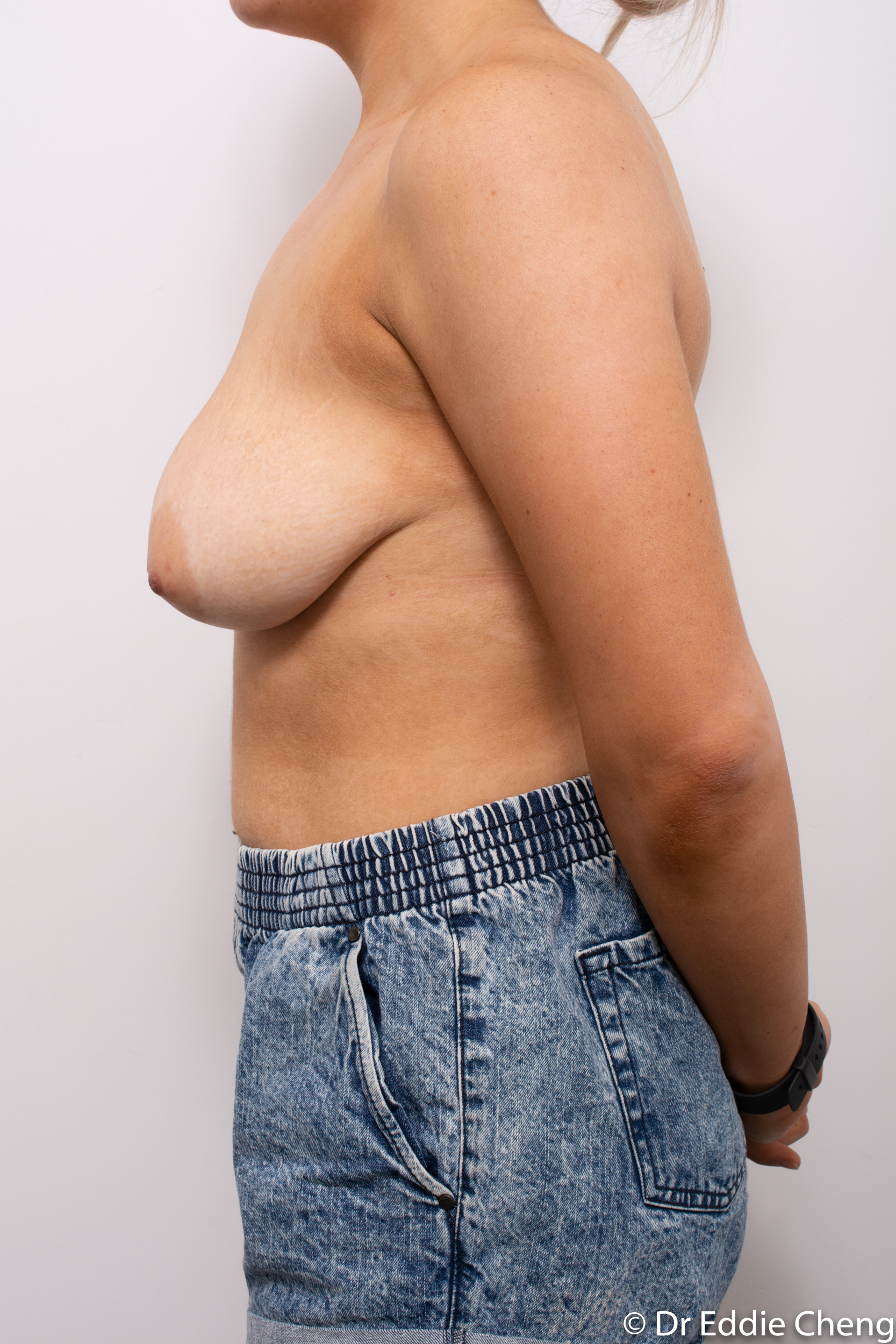 breast reduction brisbane by Dr Eddie cheng-5