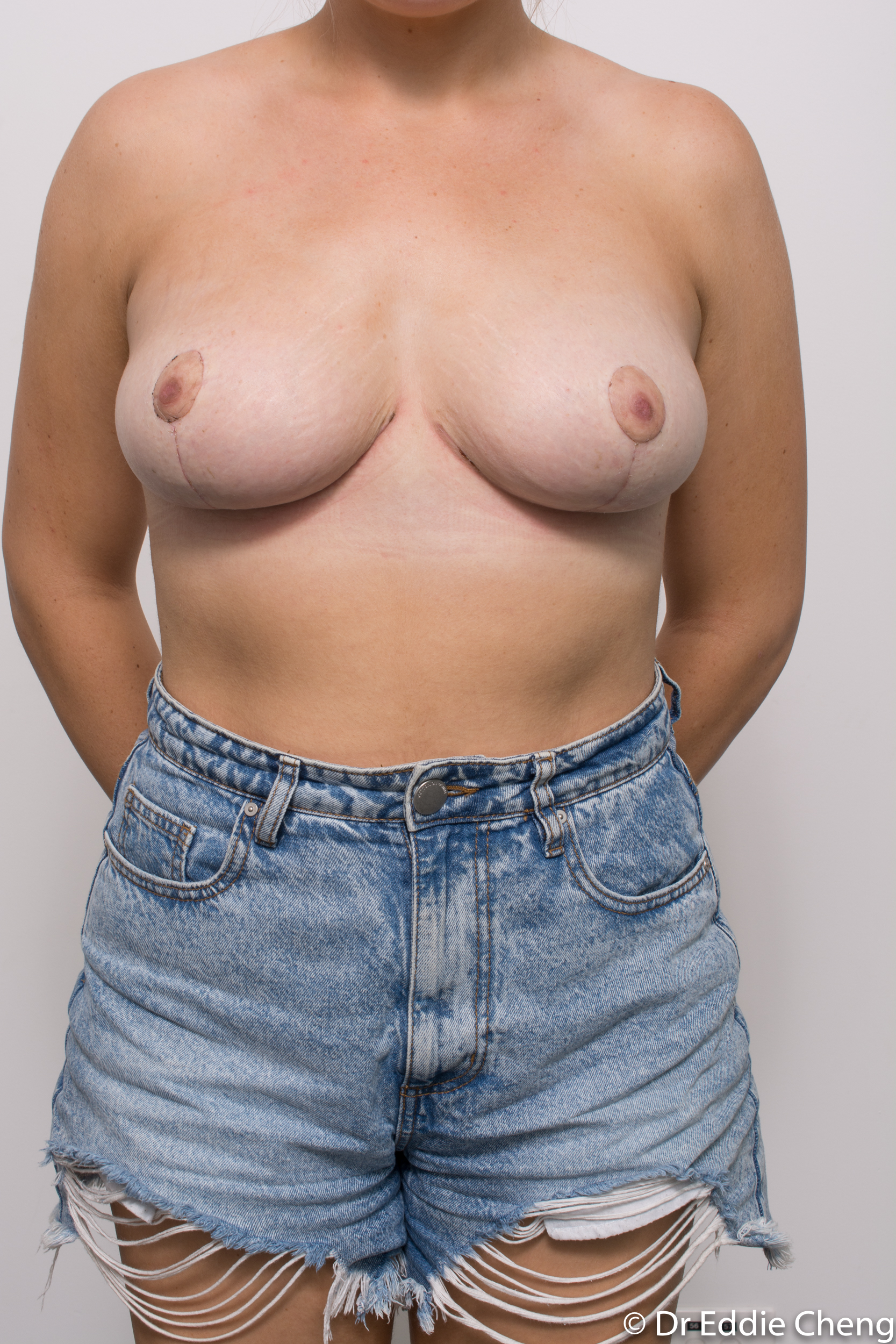 breast reduction brisbane by Dr Eddie cheng-6