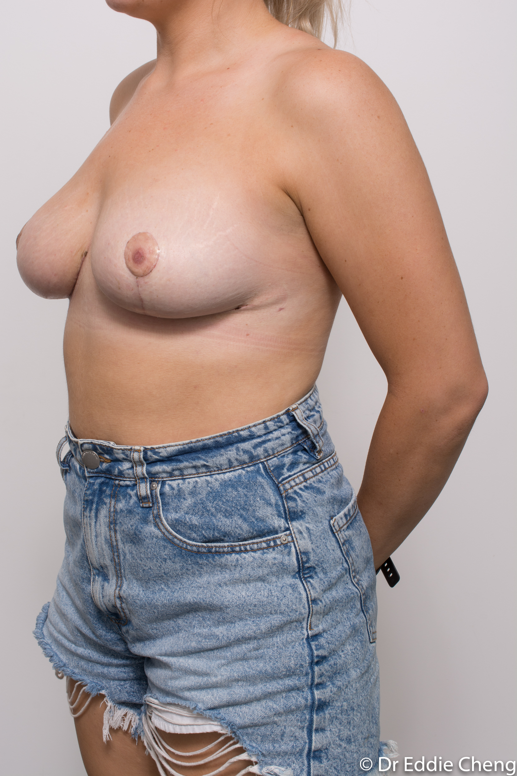 breast reduction brisbane by Dr Eddie cheng-7