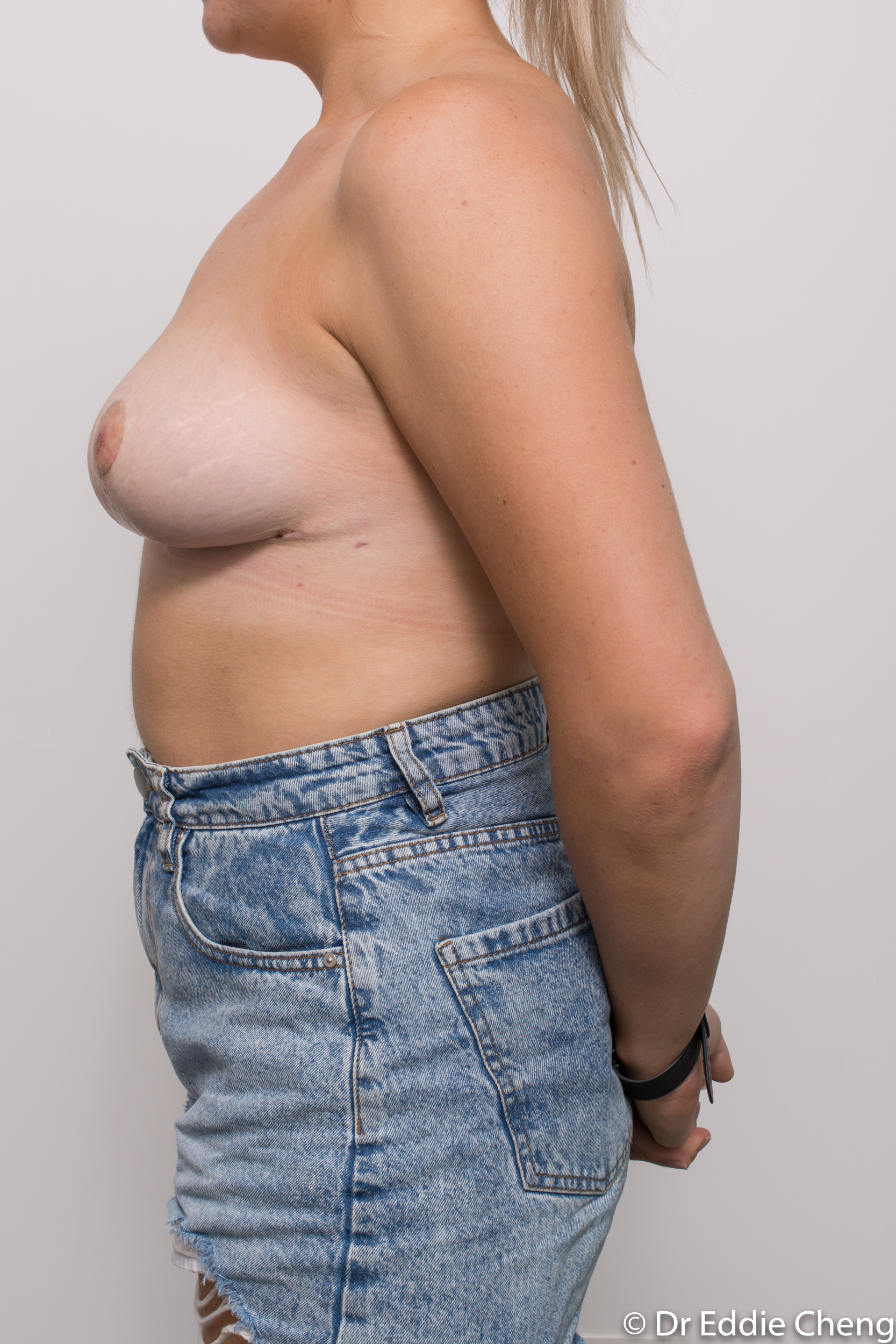 breast reduction brisbane by Dr Eddie cheng-8