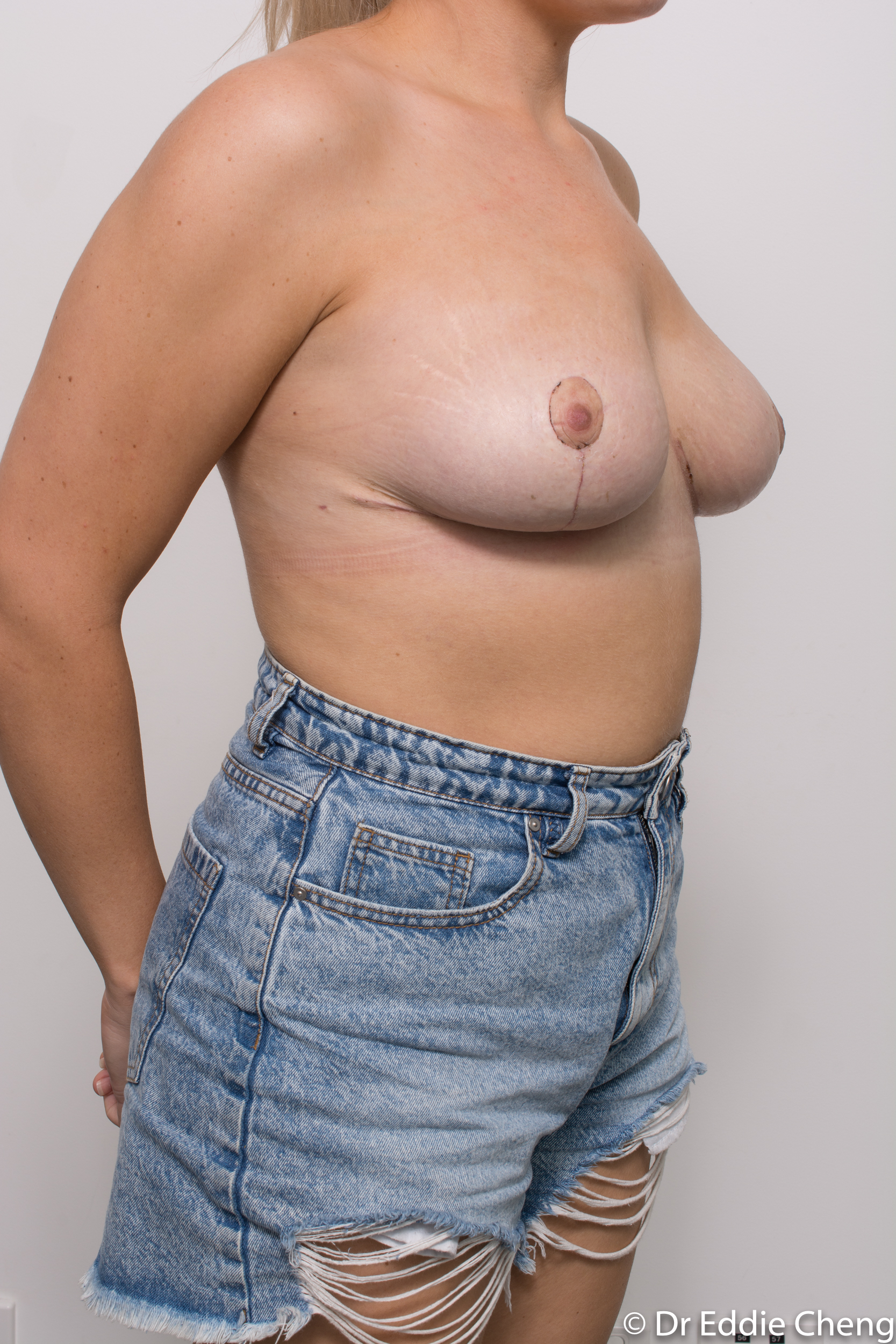 breast reduction brisbane by Dr Eddie cheng-9