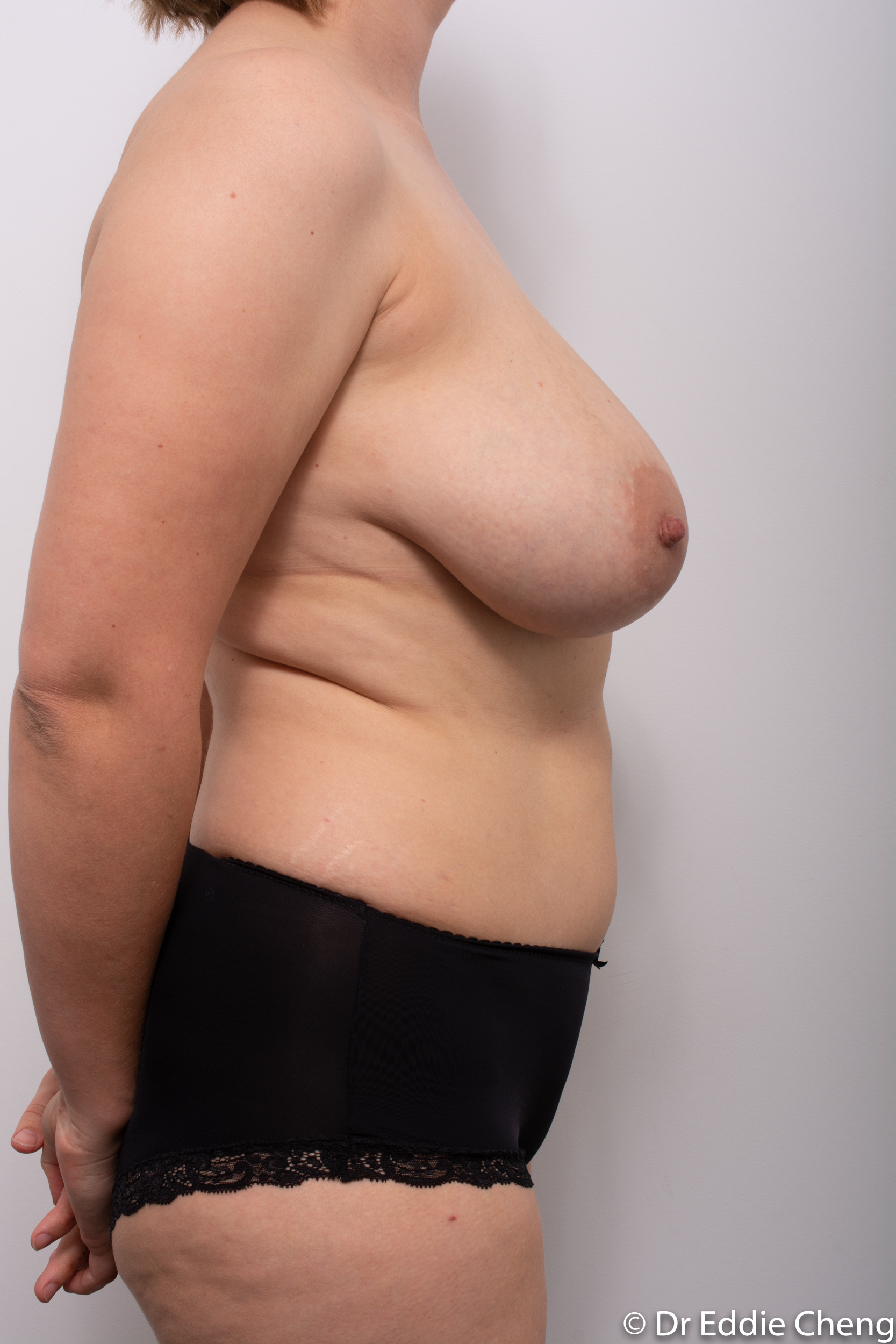 breast reduction by dr eddie cheng brisbane-1