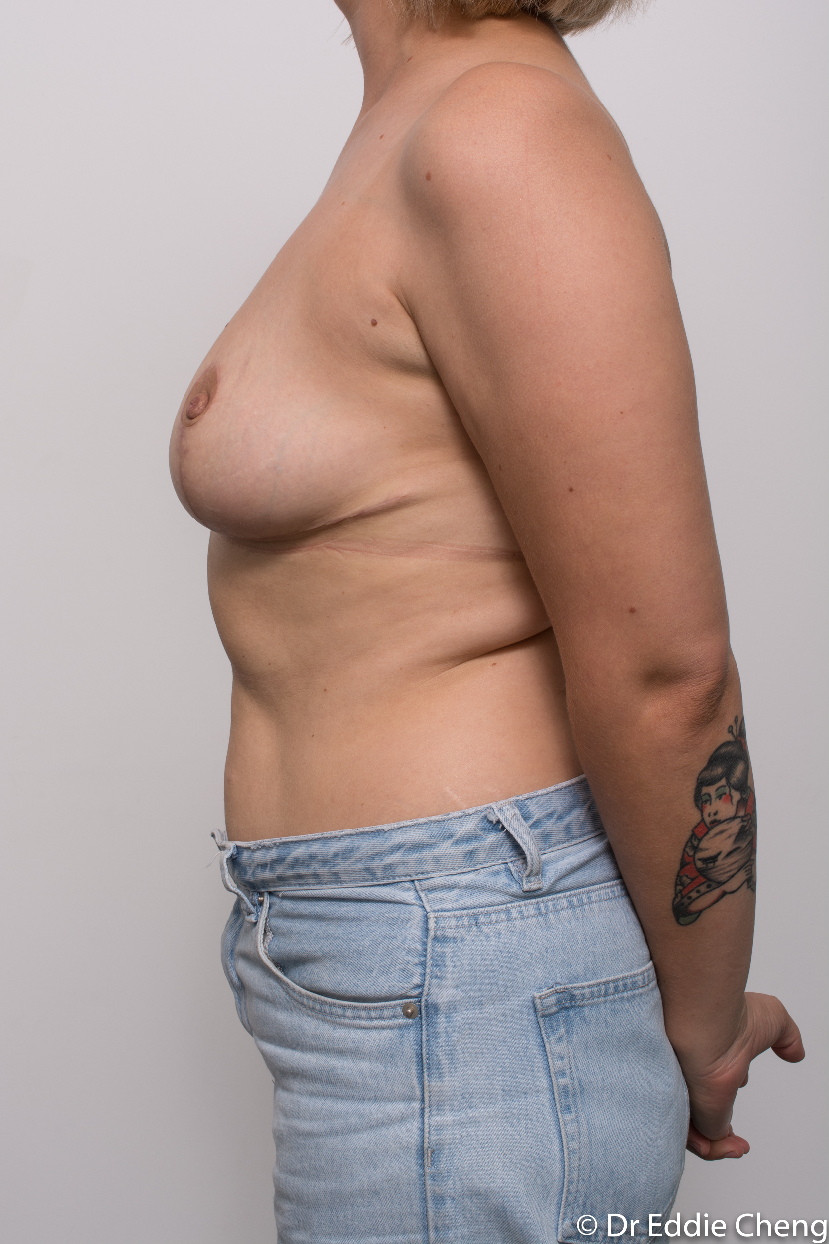 breast reduction by dr eddie cheng brisbane-10