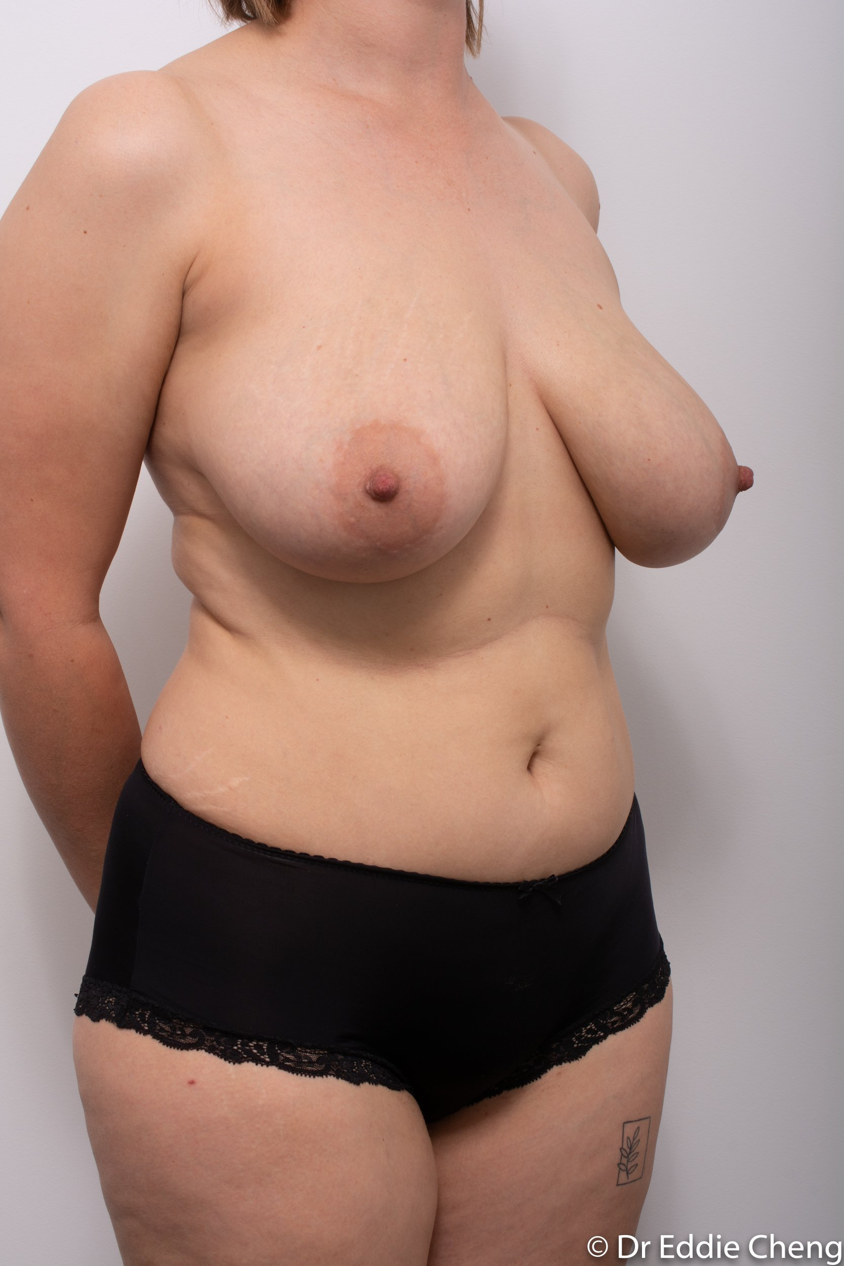 breast reduction by dr eddie cheng brisbane-2