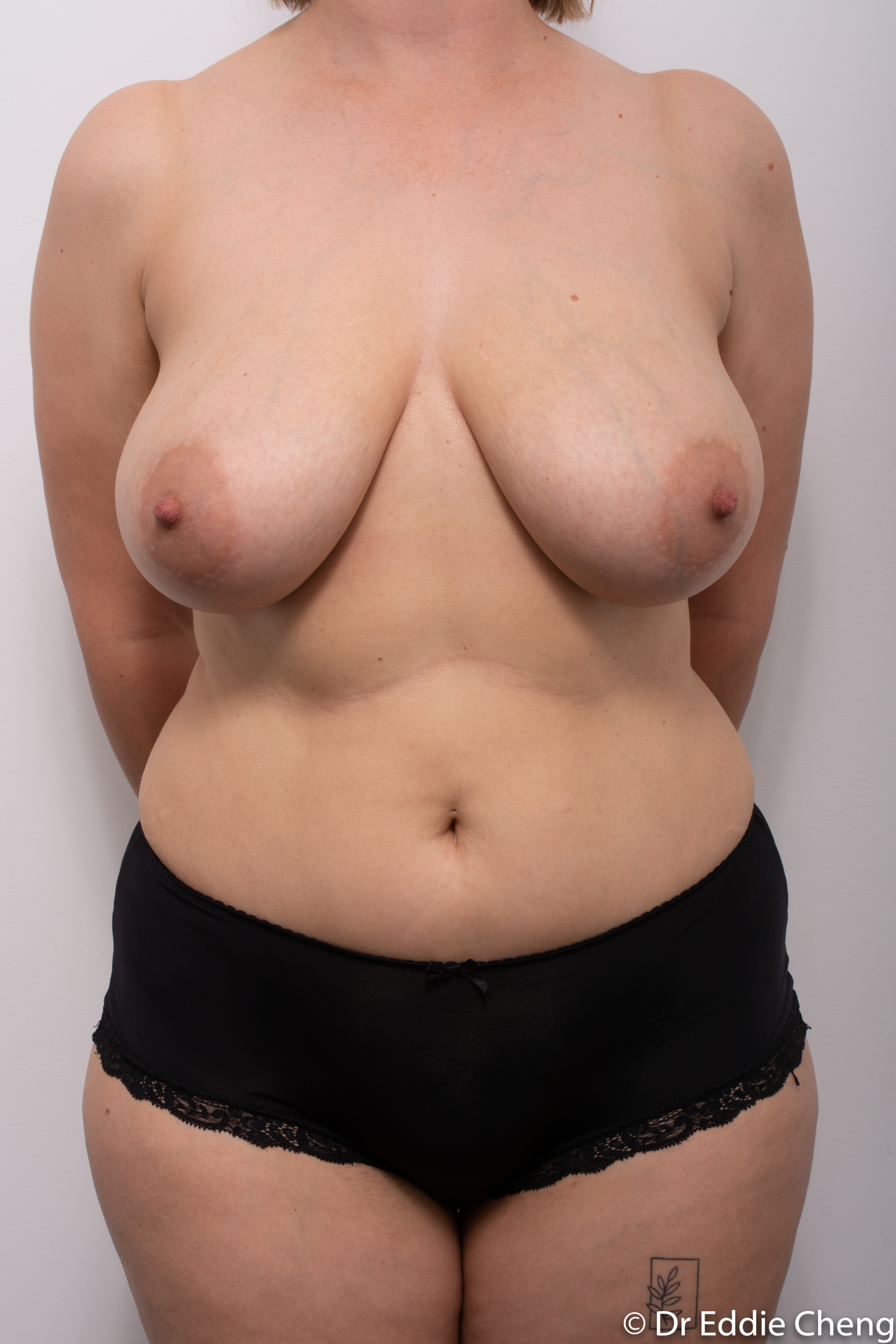 breast reduction by dr eddie cheng brisbane-3