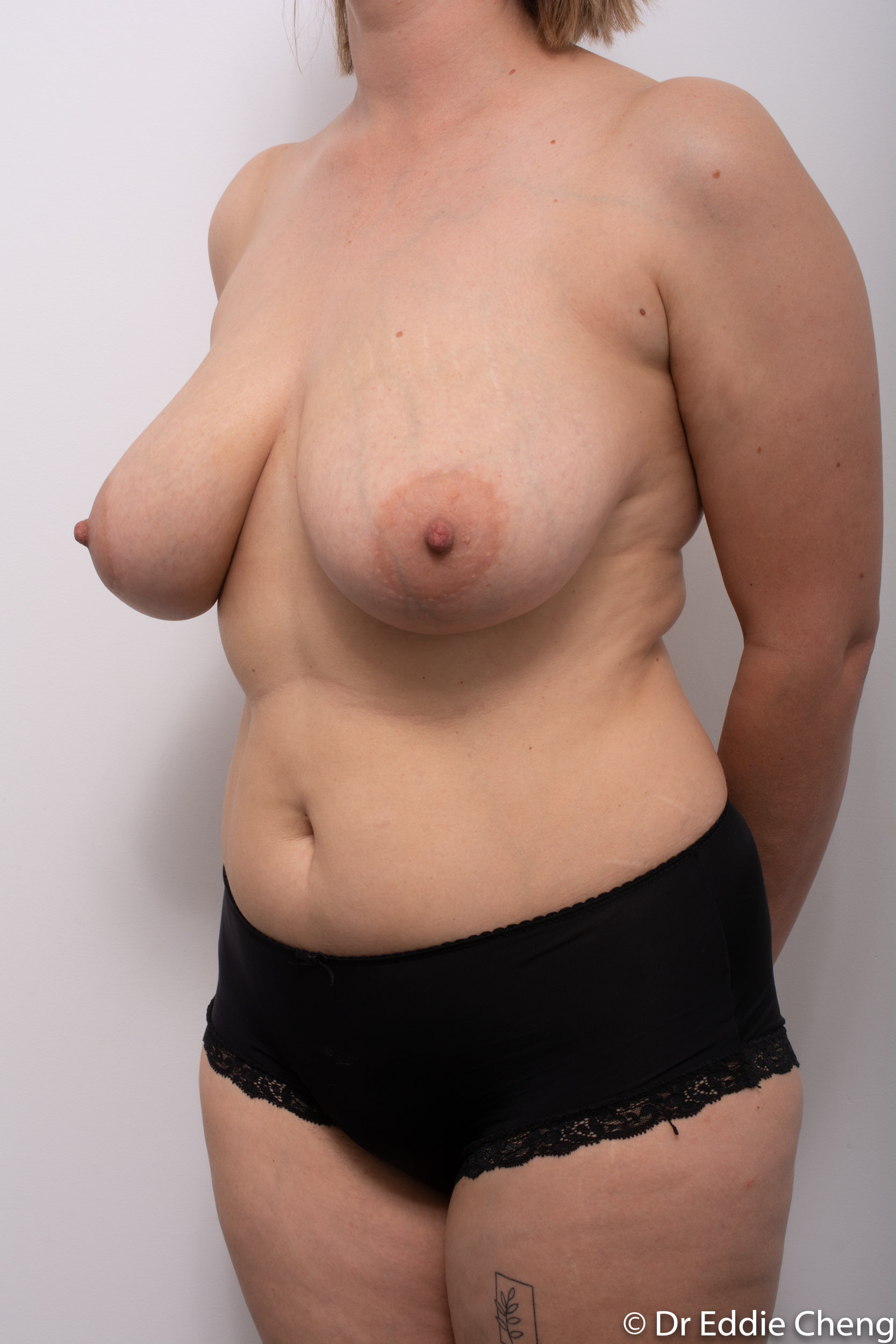 breast reduction by dr eddie cheng brisbane-4