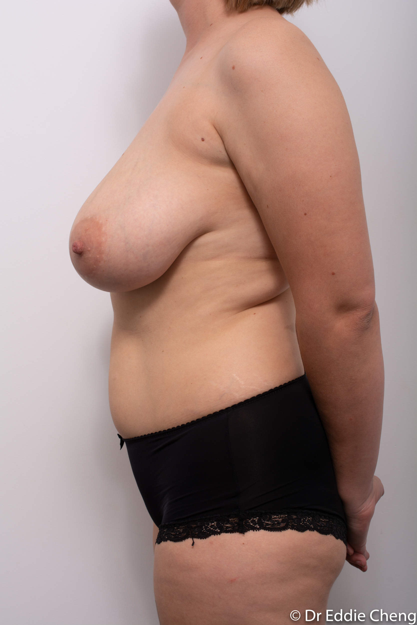 breast reduction by dr eddie cheng brisbane-5