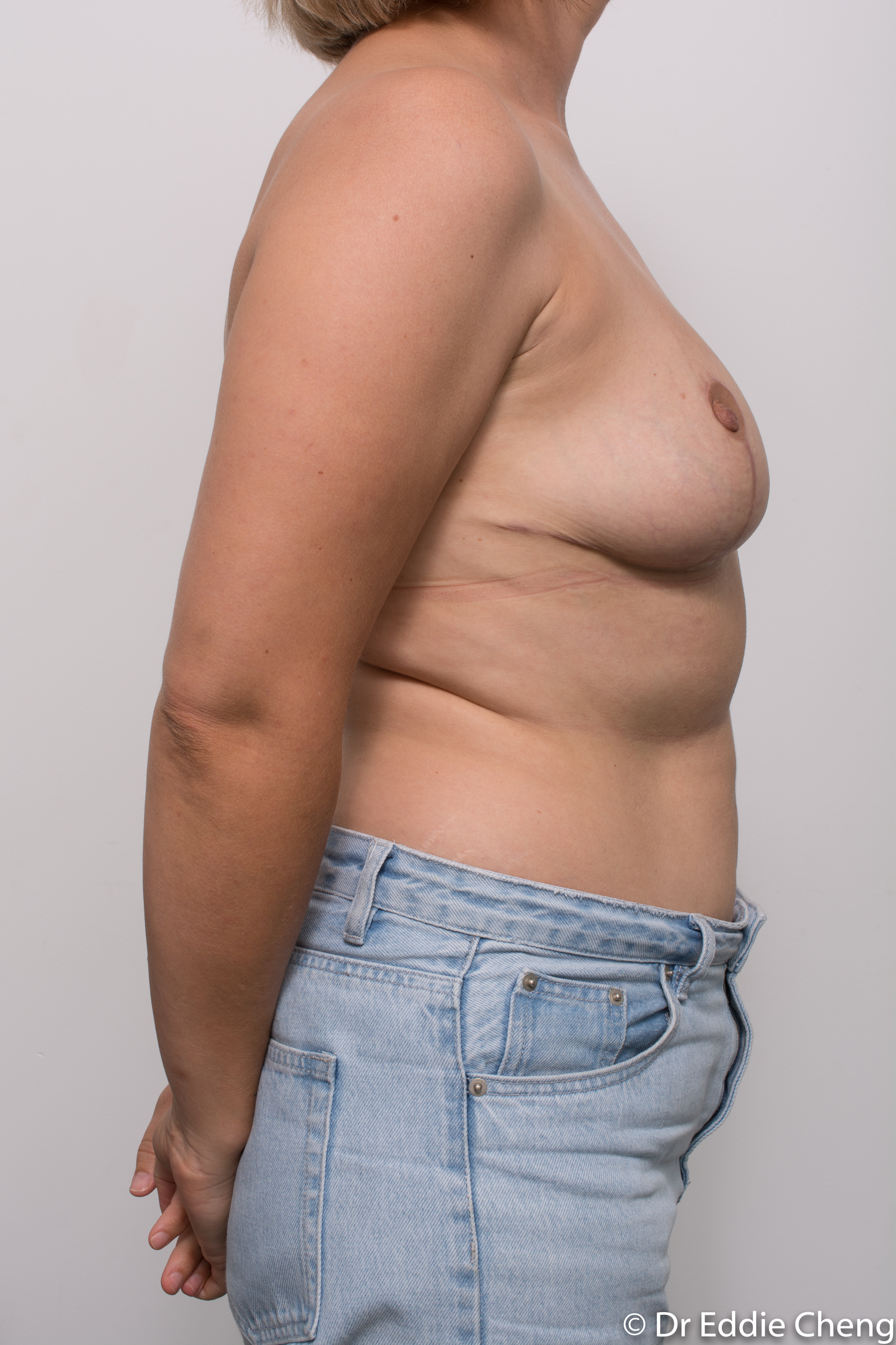 breast reduction by dr eddie cheng brisbane-6