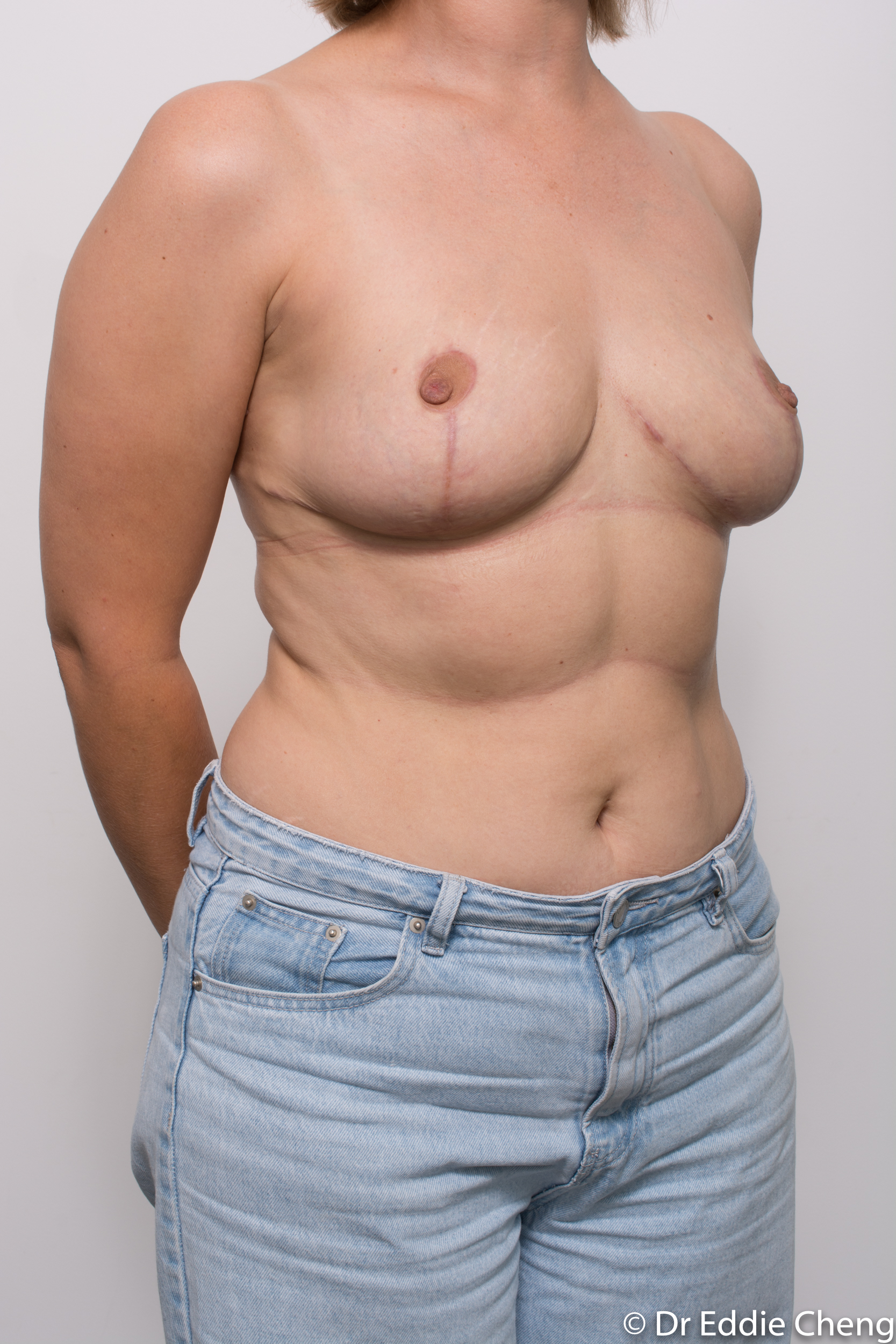 breast reduction by dr eddie cheng brisbane-7