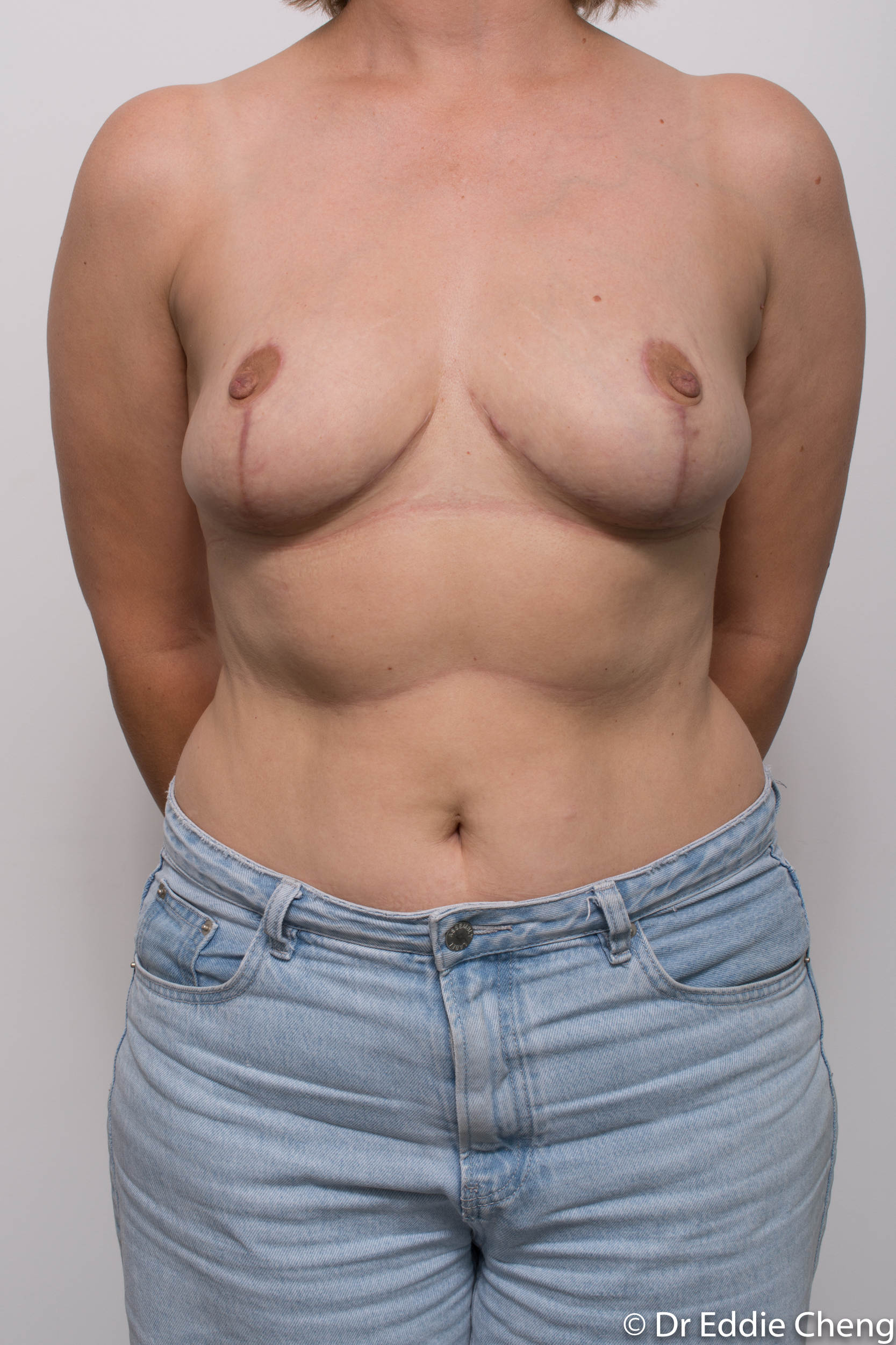 breast reduction by dr eddie cheng brisbane-8