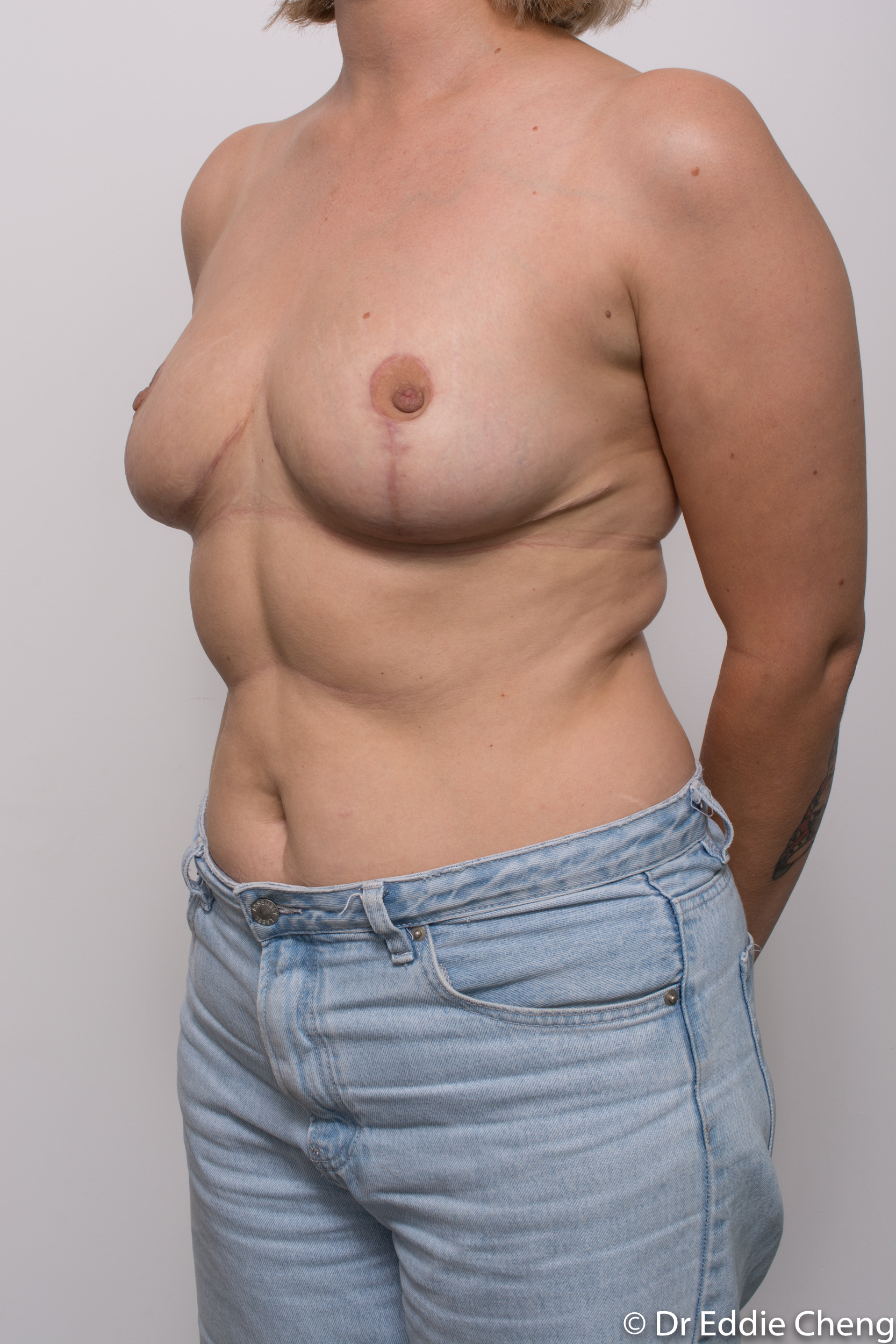 breast reduction by dr eddie cheng brisbane-9