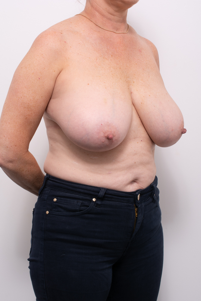 breast reduction dr eddie cheng brisbane (1 of 8)