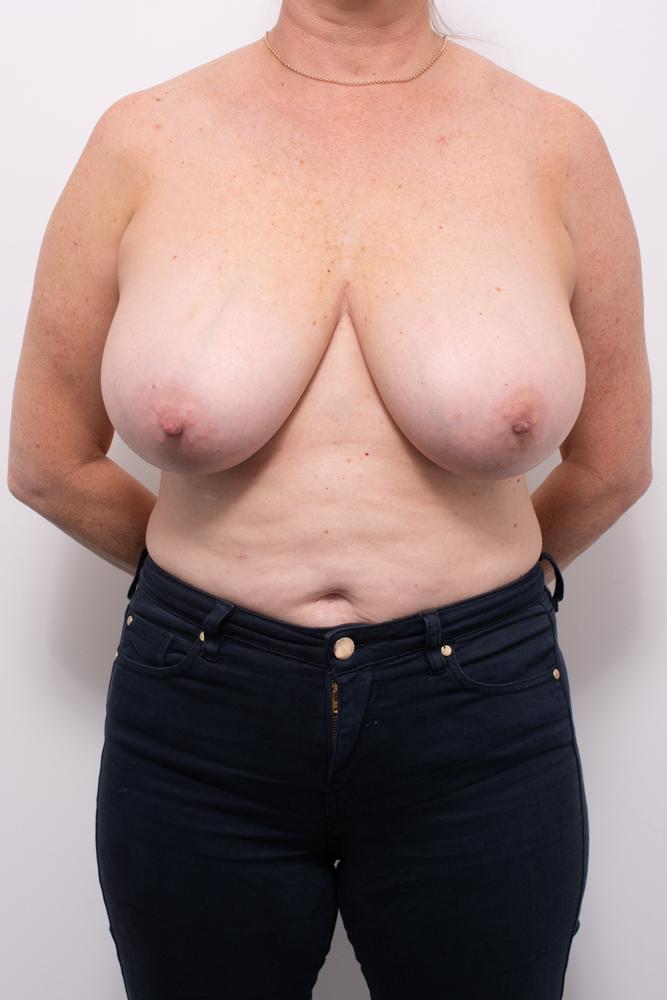 breast reduction dr eddie cheng brisbane (2 of 8)