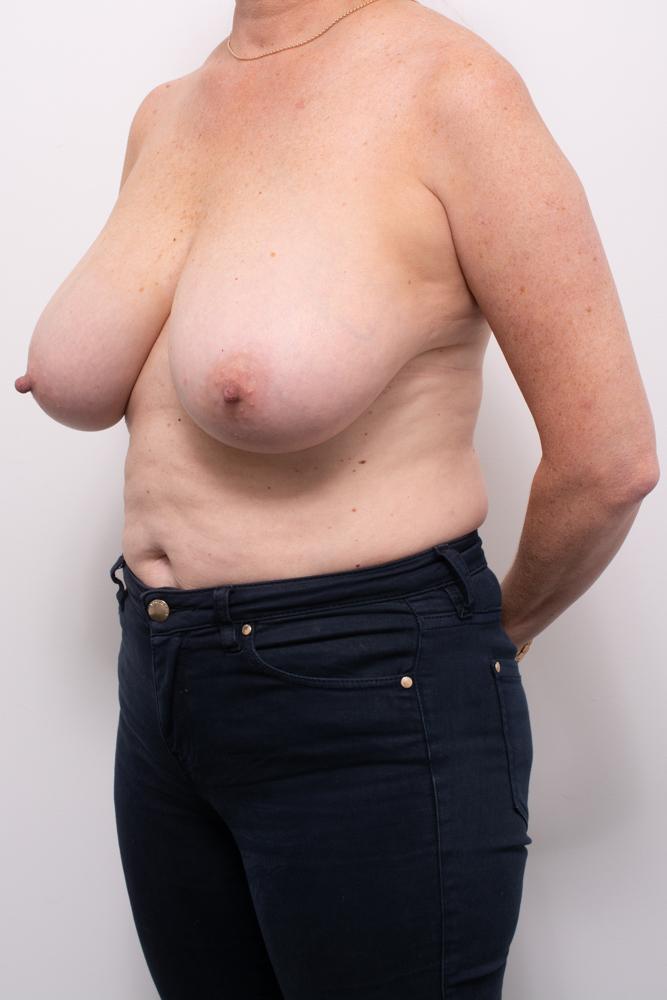breast reduction dr eddie cheng brisbane (3 of 8)