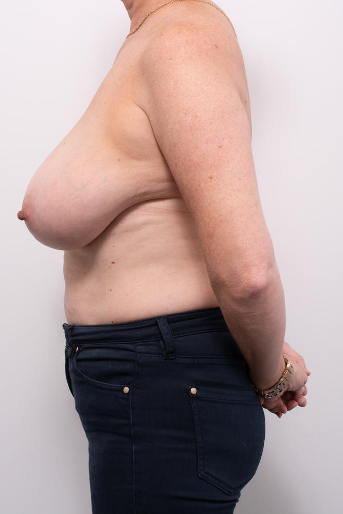 breast reduction dr eddie cheng brisbane (4 of 8)