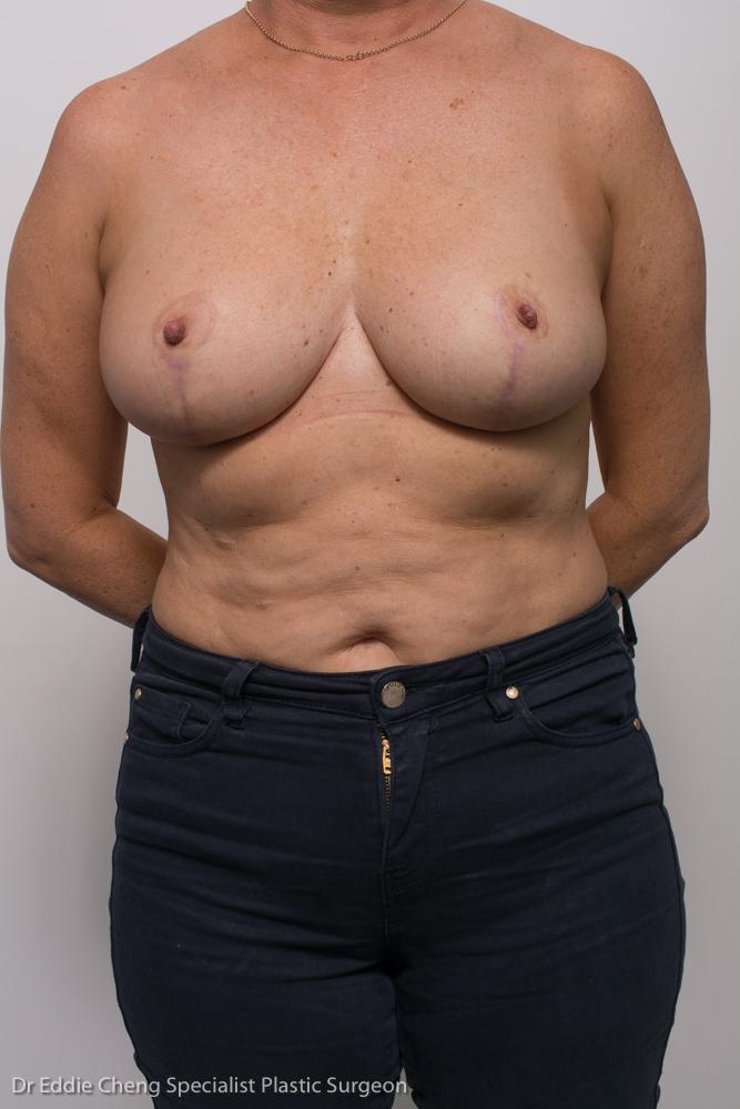 breast reduction dr eddie cheng brisbane (5 of 8)