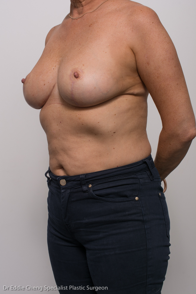 breast reduction dr eddie cheng brisbane (6 of 8)