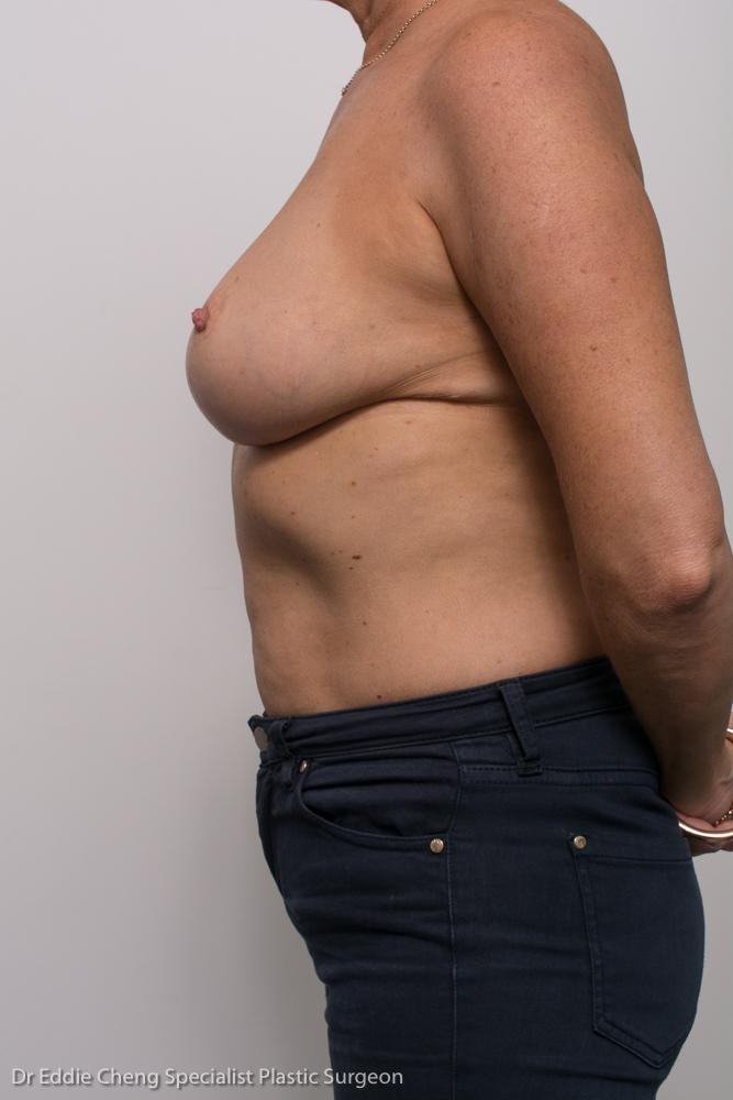 breast reduction dr eddie cheng brisbane (7 of 8)