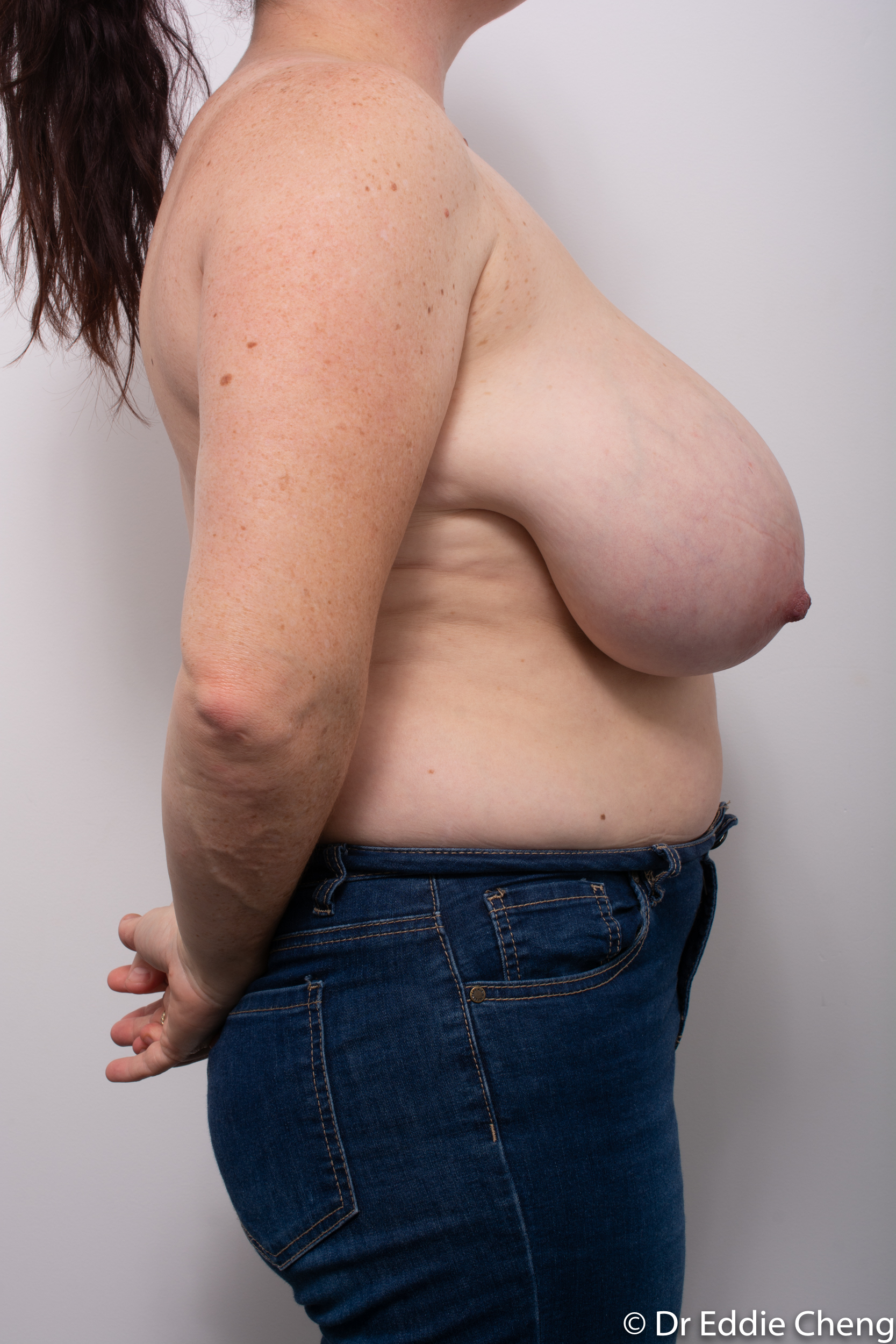 breast reduction dr eddie cheng brisbane surgeon pre and post operative images-1