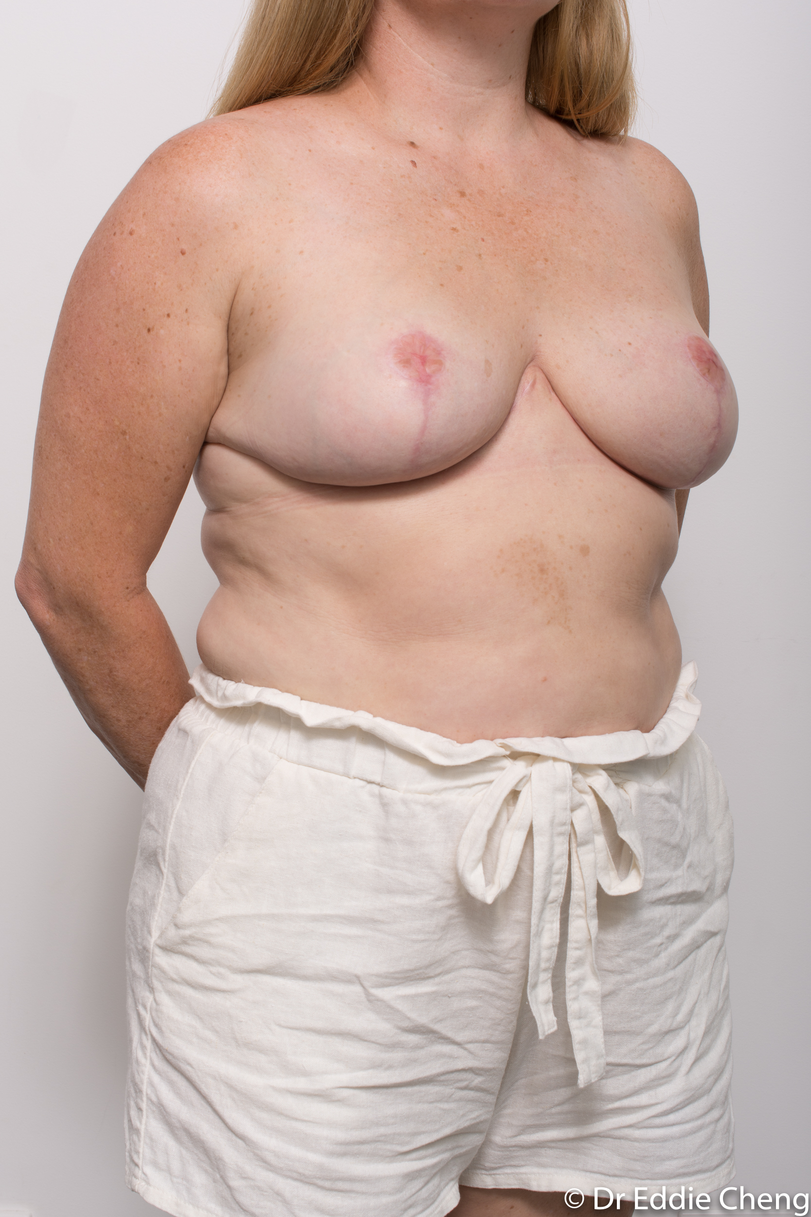 breast reduction dr eddie cheng brisbane surgeon pre and post operative images-10