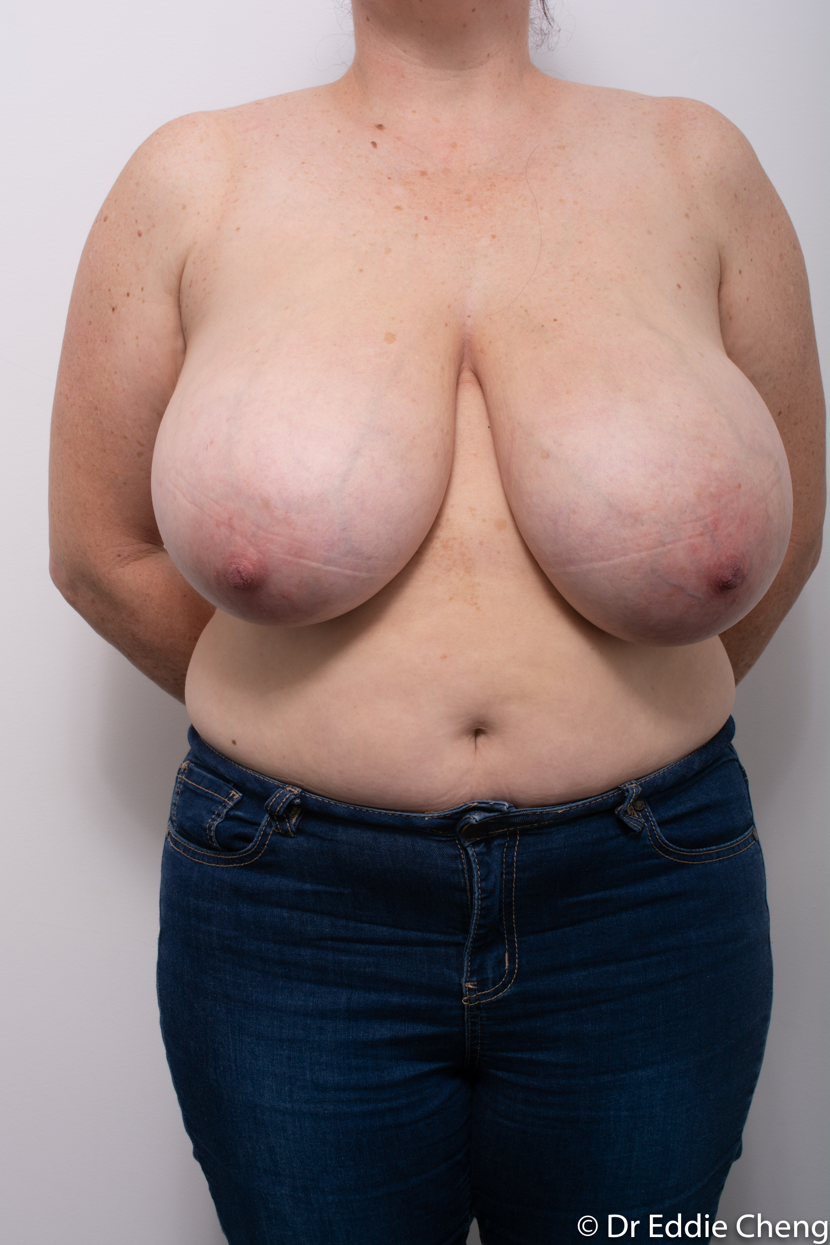 breast reduction dr eddie cheng brisbane surgeon pre and post operative images-3