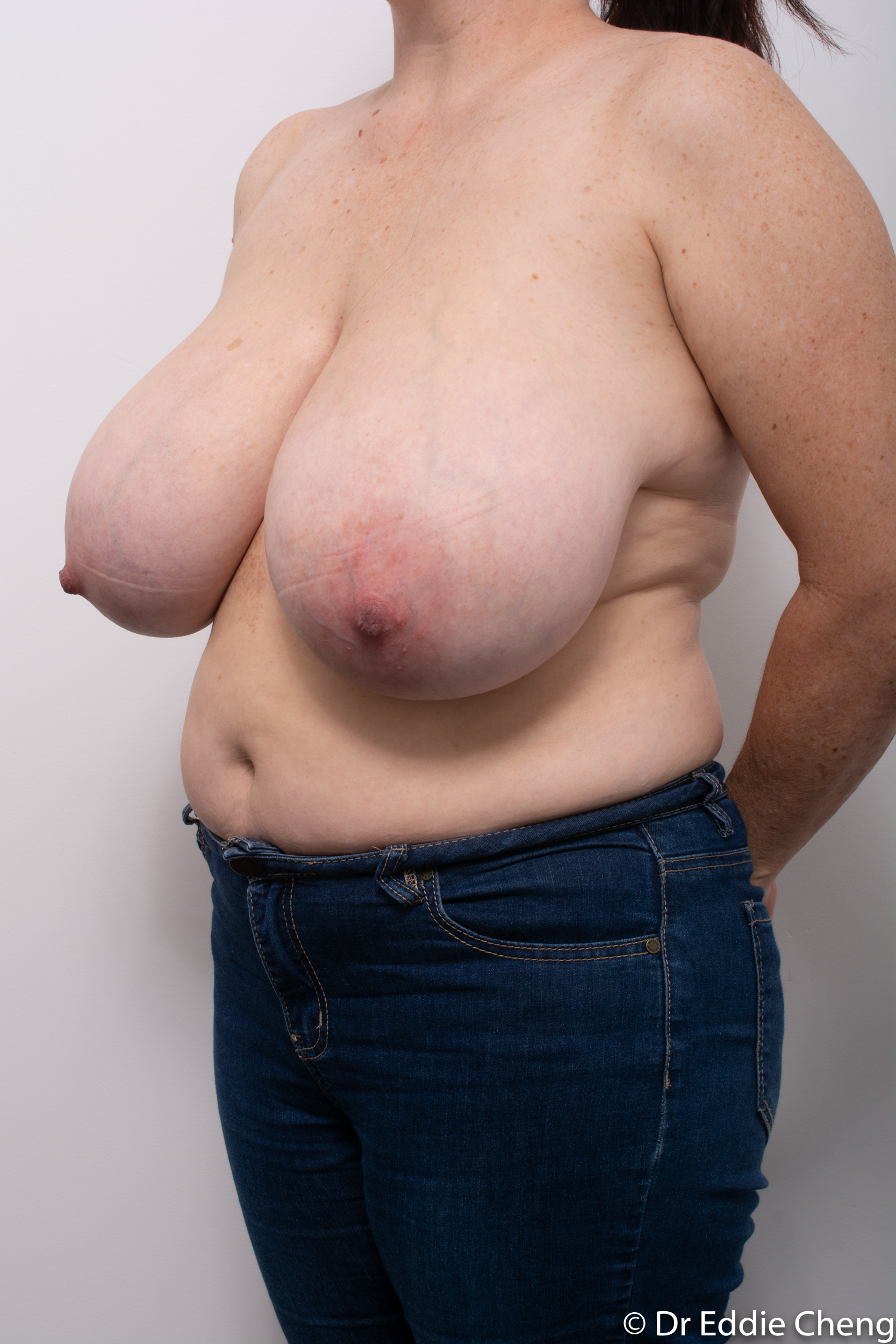 breast reduction dr eddie cheng brisbane surgeon pre and post operative images-4