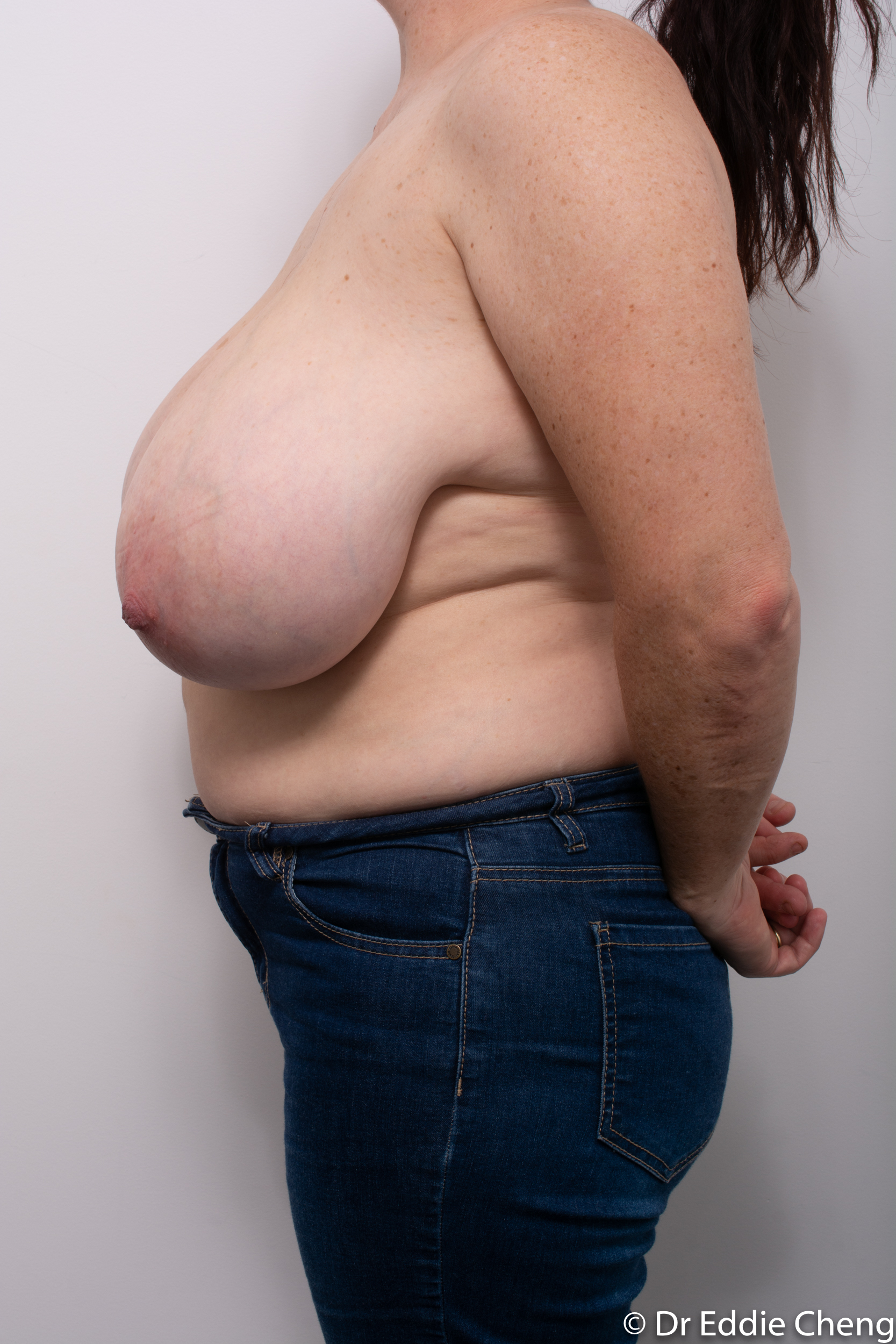 breast reduction dr eddie cheng brisbane surgeon pre and post operative images-5