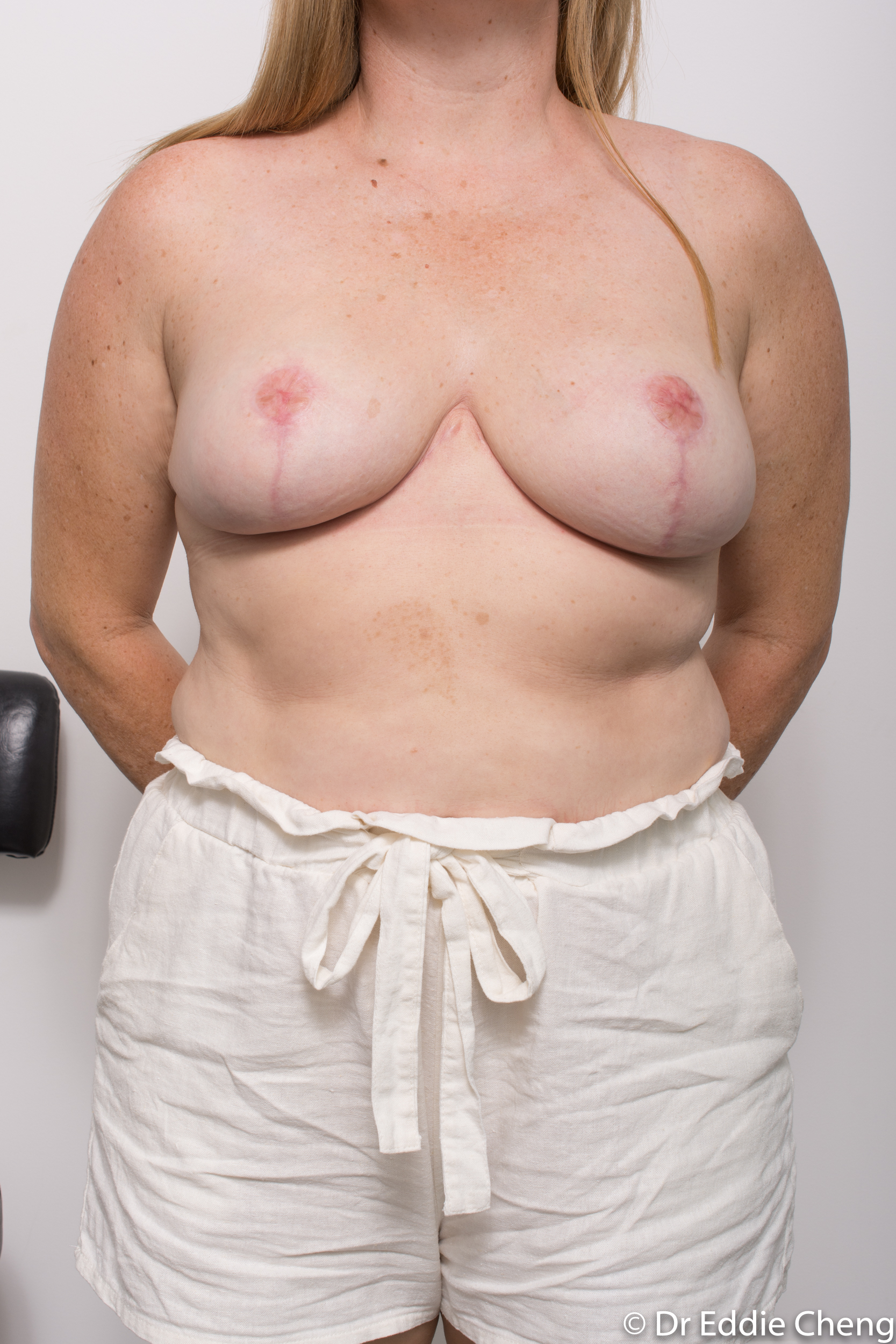 breast reduction dr eddie cheng brisbane surgeon pre and post operative images-6