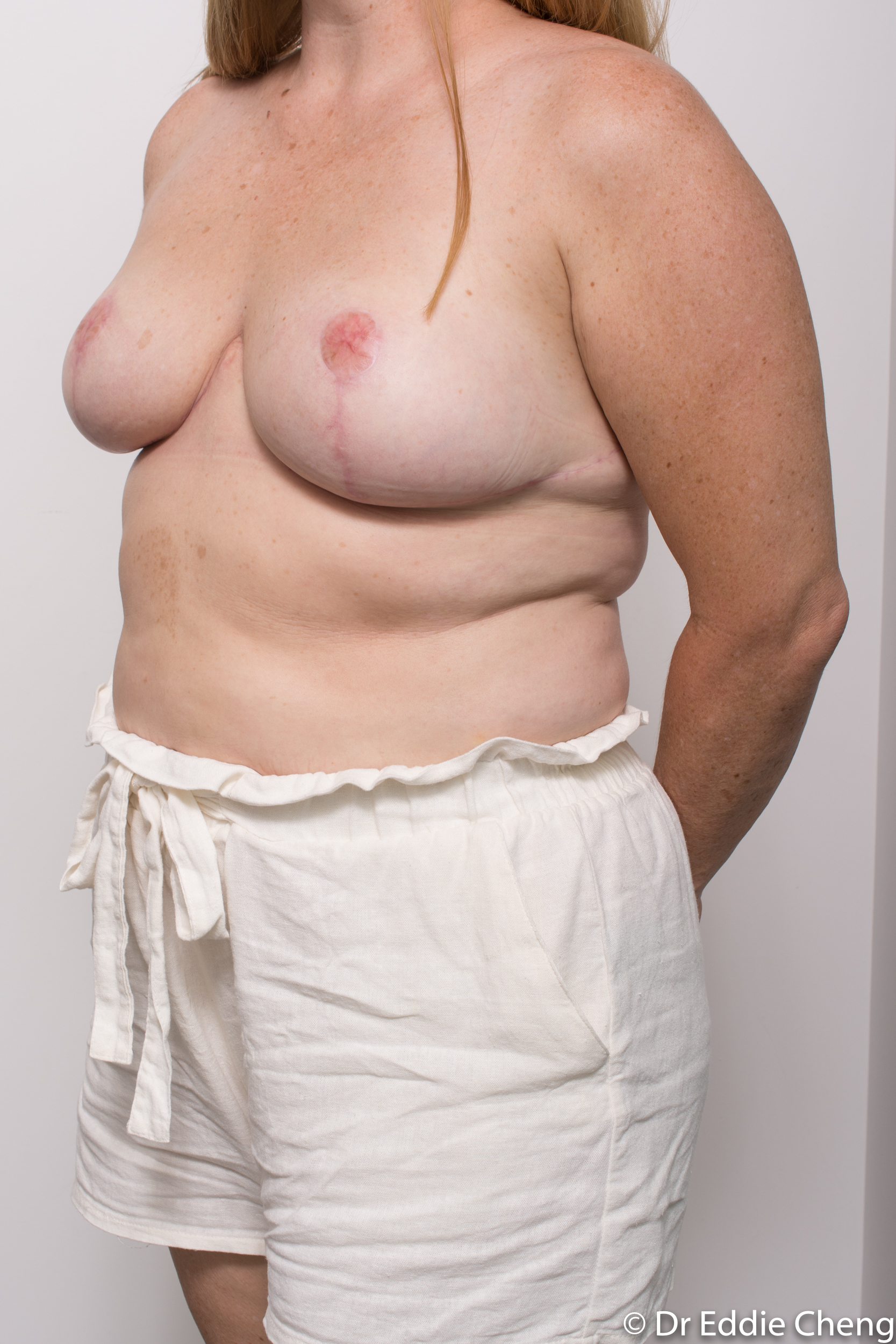 breast reduction dr eddie cheng brisbane surgeon pre and post operative images-7