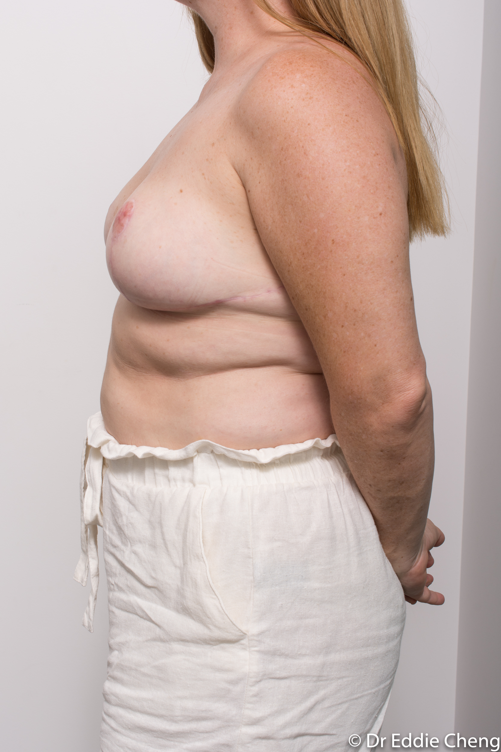 breast reduction dr eddie cheng brisbane surgeon pre and post operative images-8