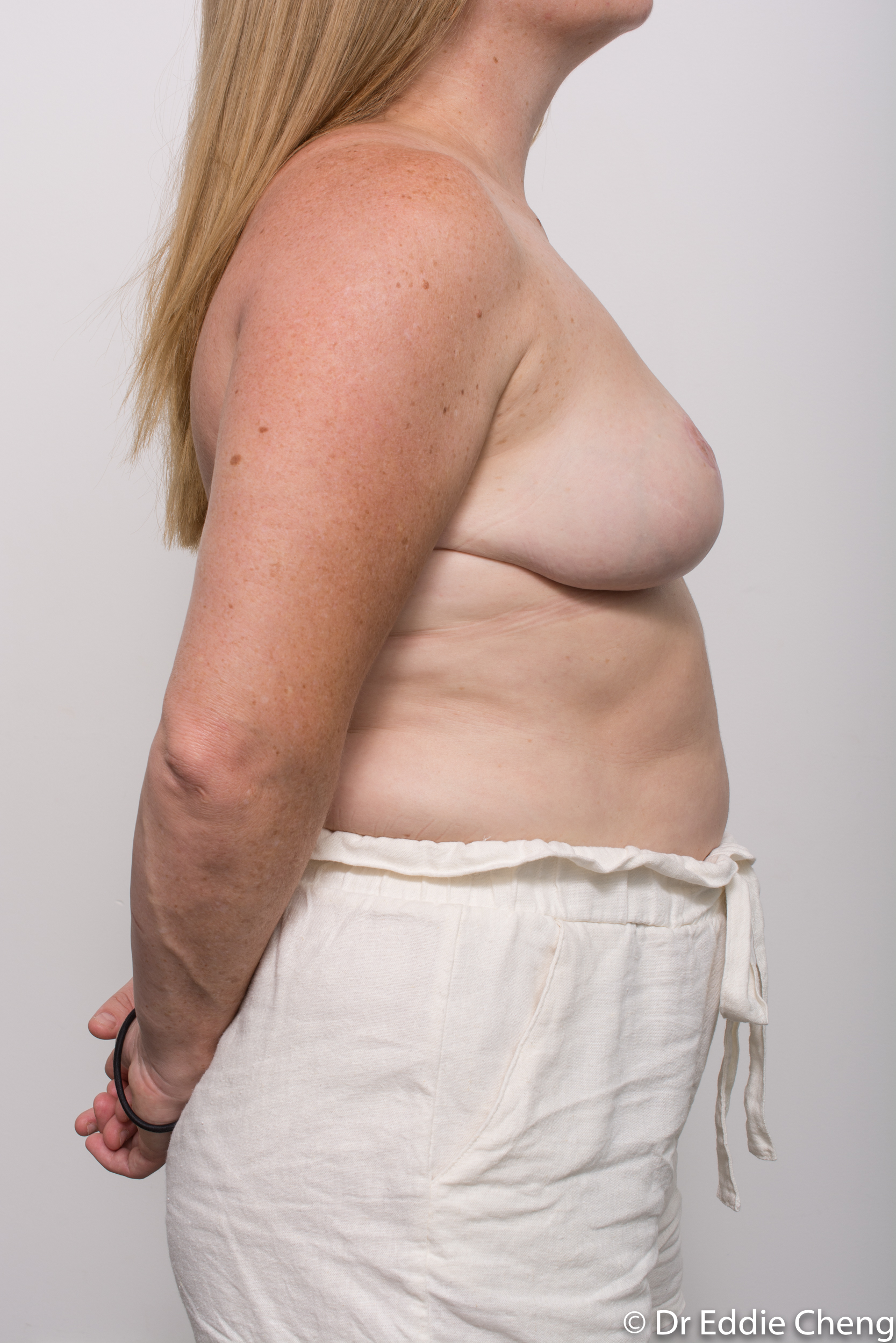 breast reduction dr eddie cheng brisbane surgeon pre and post operative images-9