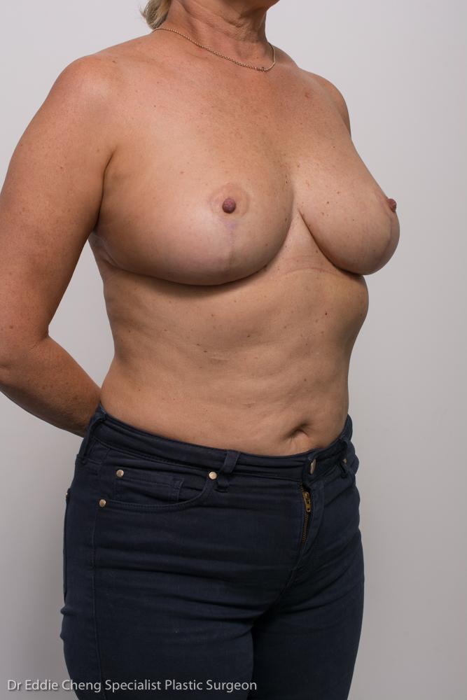 breast reduction dr eddie cheng brisbane1 (1 of 1)