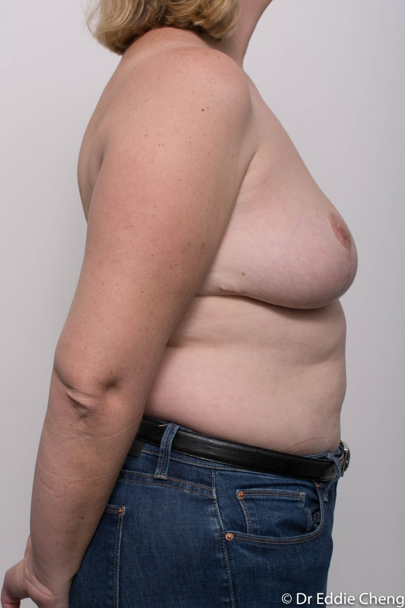 breast-reduction-post-op-4-months-10-800x1200