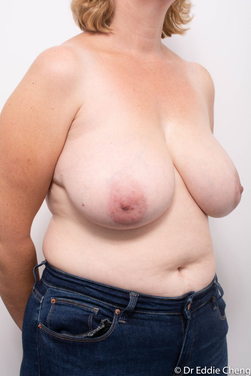 breast-reduction-post-op-4-months-2-800x1200