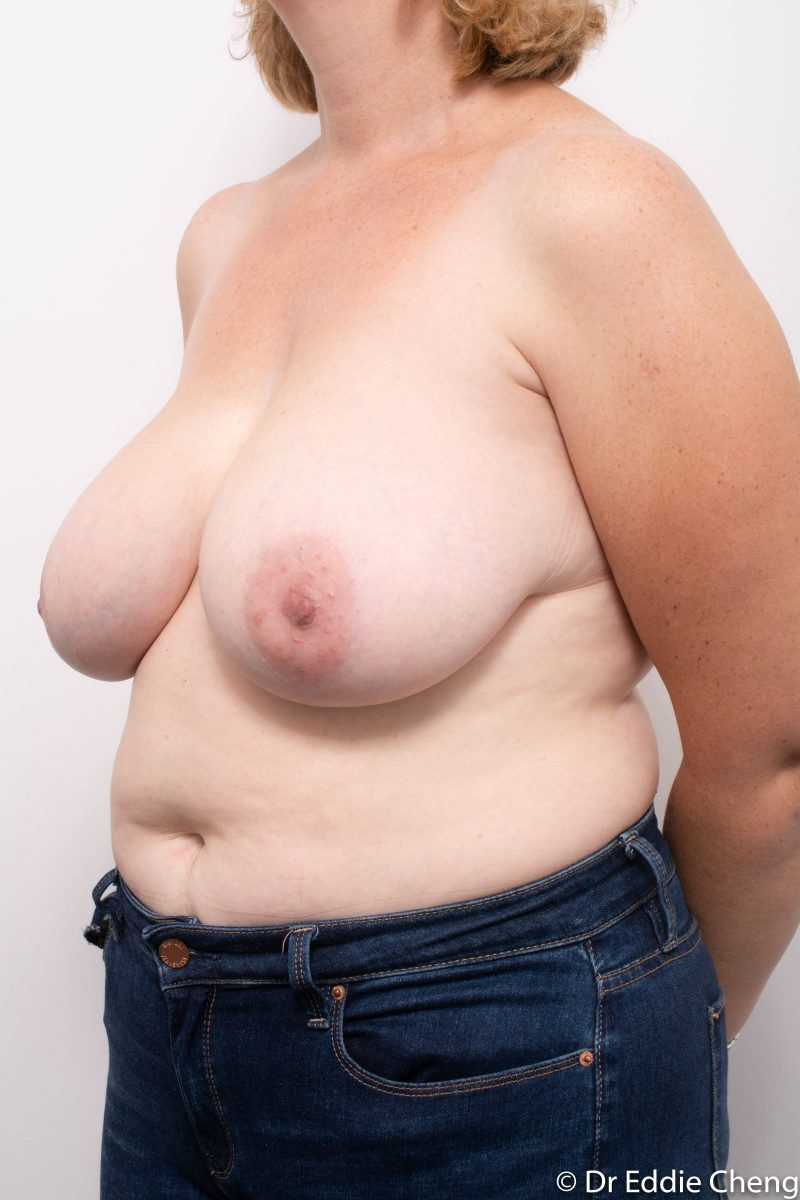 breast-reduction-post-op-4-months-4-800x1200