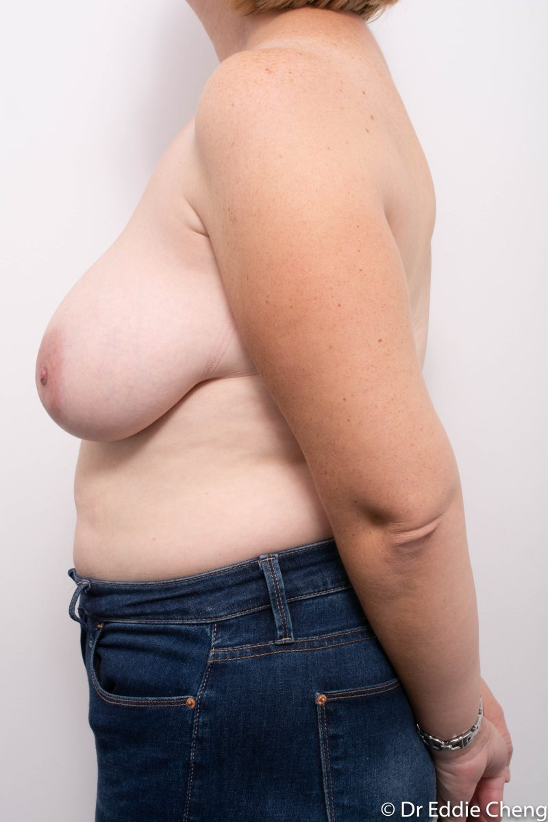 breast-reduction-post-op-4-months-5-800x1200